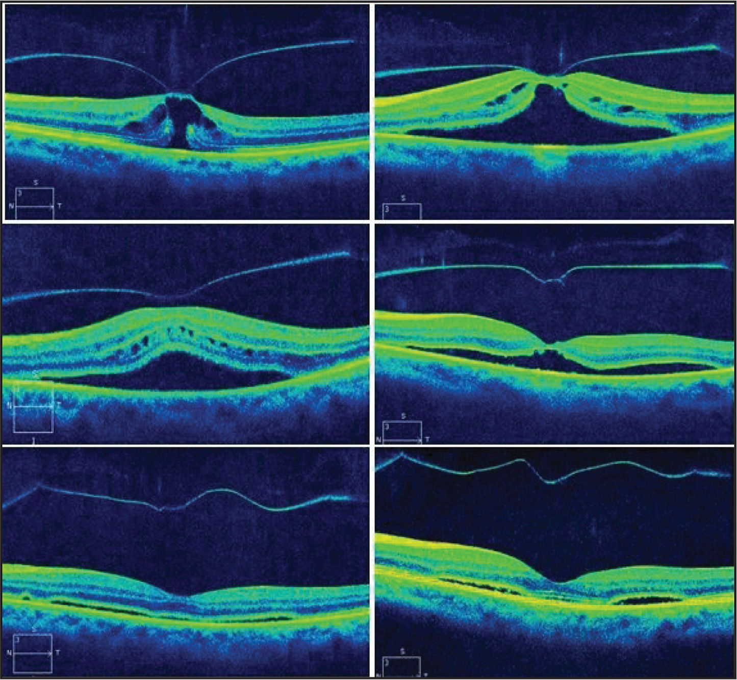 Patient 20. Fifty-eight-year-old phakic woman with intraretinal cysts and impending macular hole (top left). Continued vitreomacular traction with serous macular detachment 4 days after treatment (top right). Vitreomacular traction persisted at day 7 (middle left) but had released by day 14 (middle right). Thin subretinal fluid persisted 8 weeks after treatment (bottom left). After 5 months, the central macula has reattached but paracentral subretinal fluid persists (bottom right).