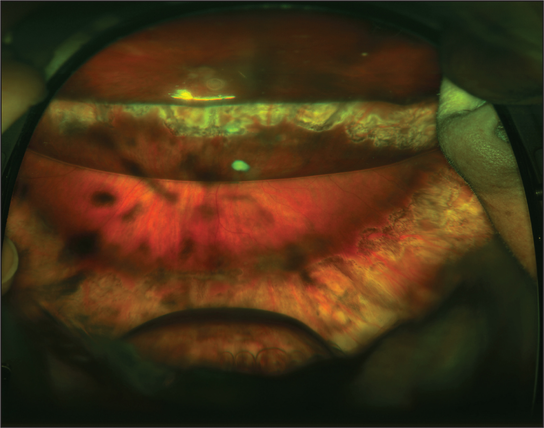 Wide-field fundus photograph demonstrating a large amount of retained intravitreal perfluoro-n-octane (PFO) after valved cannula pars plana vitrectomy for rheg-matogenous retinal detachment at postoperative month 2 (case 5). A large residual PFO bubble is seen inferiorly, and a partial residual C3F8 gas fill is seen superiorly.
