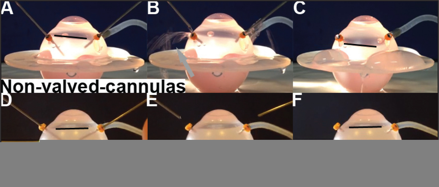 Silicone eye model. Non-valved cannulas (A–C) or valved cannulas (D–F) were placed in a standard three-port configuration in silicone model eyes, which were then filled with perfluoro-n-octane (PFO) (PFO meniscus indicated by black line) anterior to the level of the cannula insertion (A,D). When instruments were removed, PFO leaked through the non-valved cannulas (B, arrow), and the PFO level dropped to the level of the cannulas (C). The same procedure with valved cannulas demonstrated a stable PFO meniscus anterior to cannula insertion after instrument removal (E–F).