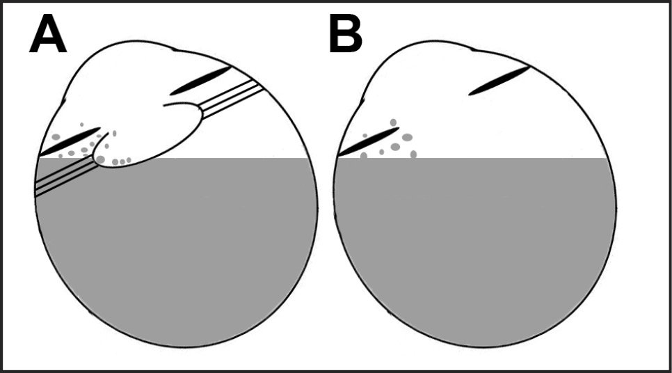 Illustration of the proposed mechanism of perfluoro-n-octane (PFO) retention in valved cannula vitrectomy. Valved cannulas enable sustained PFO fill anterior to the level of cannula insertion, which may allow PFO access to and sequestration within the anterior chamber, zonules, ciliary sulcus, ciliary teeth, and/or capsular bag in pseudophakic eyes (A) and aphakic eyes (B), particularly after rotational eye movements.