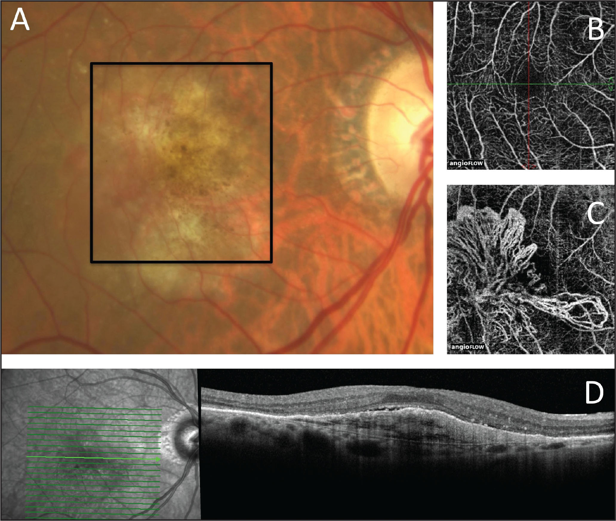 (A) Color photograph shows the right eye of an 82-year-old woman with neovascular age-related macular degeneration after 68 intravitreal anti-VEGF injections at intervals of approximately every 5 to 6 weeks. Visual acuity is 20/50. (B) En face OCT angiography at the level of the inner retina shows a normal retinal vascular pattern. (C) En face OCT angiography segmenting just below the retinal pigment epithelium shows an extensive tangled network of mature type 1 neovessels. (D) SD-OCT shows type 1 neovascularization with a small amount of overlying subretinal fluid and fairly well preserved outer retinal architecture.