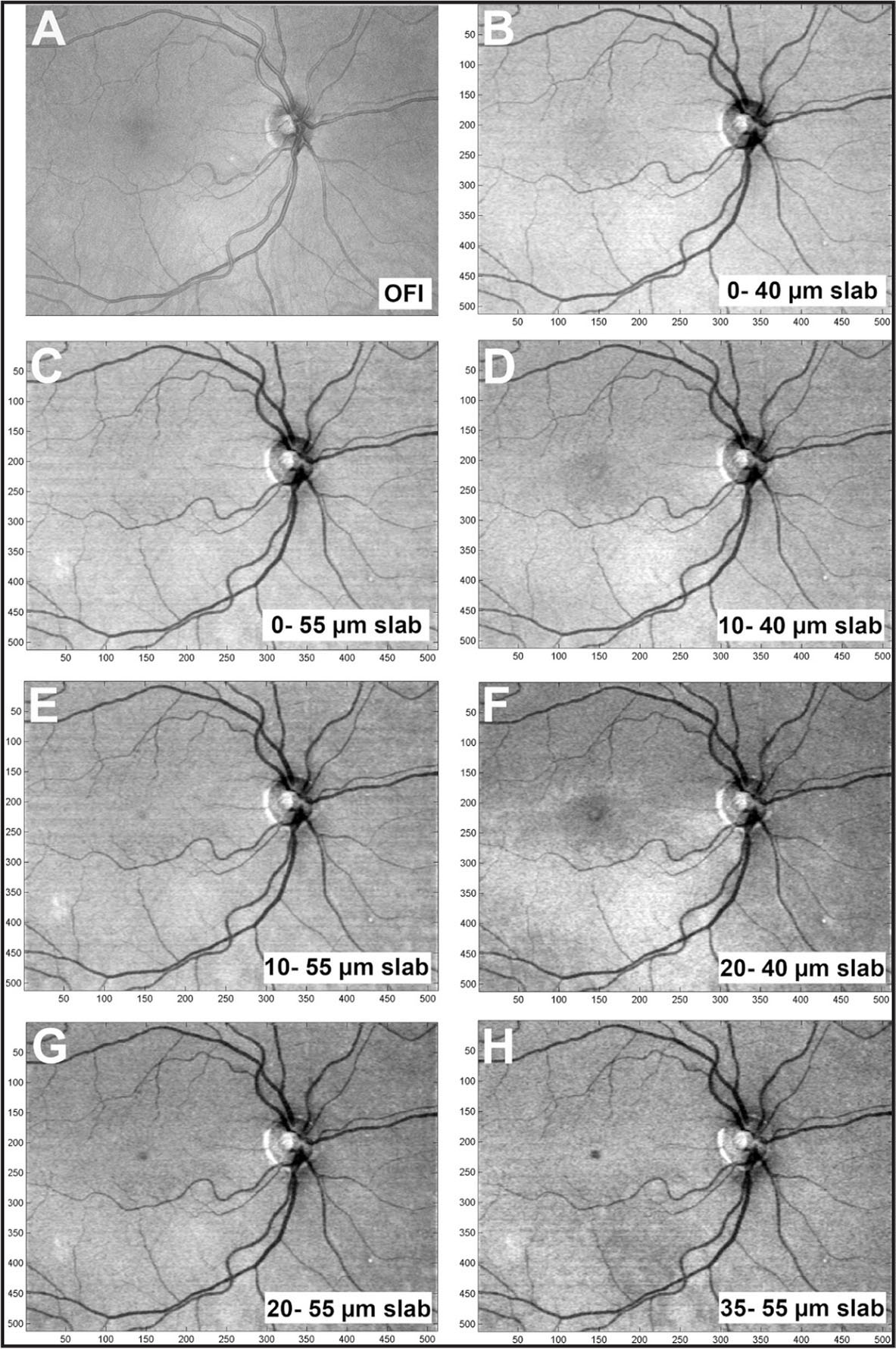 Swept-source OCT widefield en face images (9 × 12 mm) showing different intraretinal slabs of a normal right eye in a 57-year-old man. The en face images correspond to the slabs shown in Figures 1 and 2. (A) Full-thickness OCT fundus images. (B) Widefield en face image of a 40-µm thick slab, located 0 to 40 µm above the retinal pigment epithelium (RPE). (C) Widefield en face image of a 55 µm thick slab, located 0 to 55 µm above the RPE. (D) Widefield en face image of a 30 µm thick slab, located 10 to 40 µm above the RPE. (E) Widefield en face image of a 45 µm thick slab, located 10 to 55 µm above the RPE. (F) Widefield en face image of a 20 µm thick slab, located 20 to 40 µm above the RPE. (G) Widefield en face of a 35 µm thick slab, located 20 to 55 µm above the RPE. (H) Widefield en face image of a 20 µm thick slab, located 35 to 55 µm above the RPE.