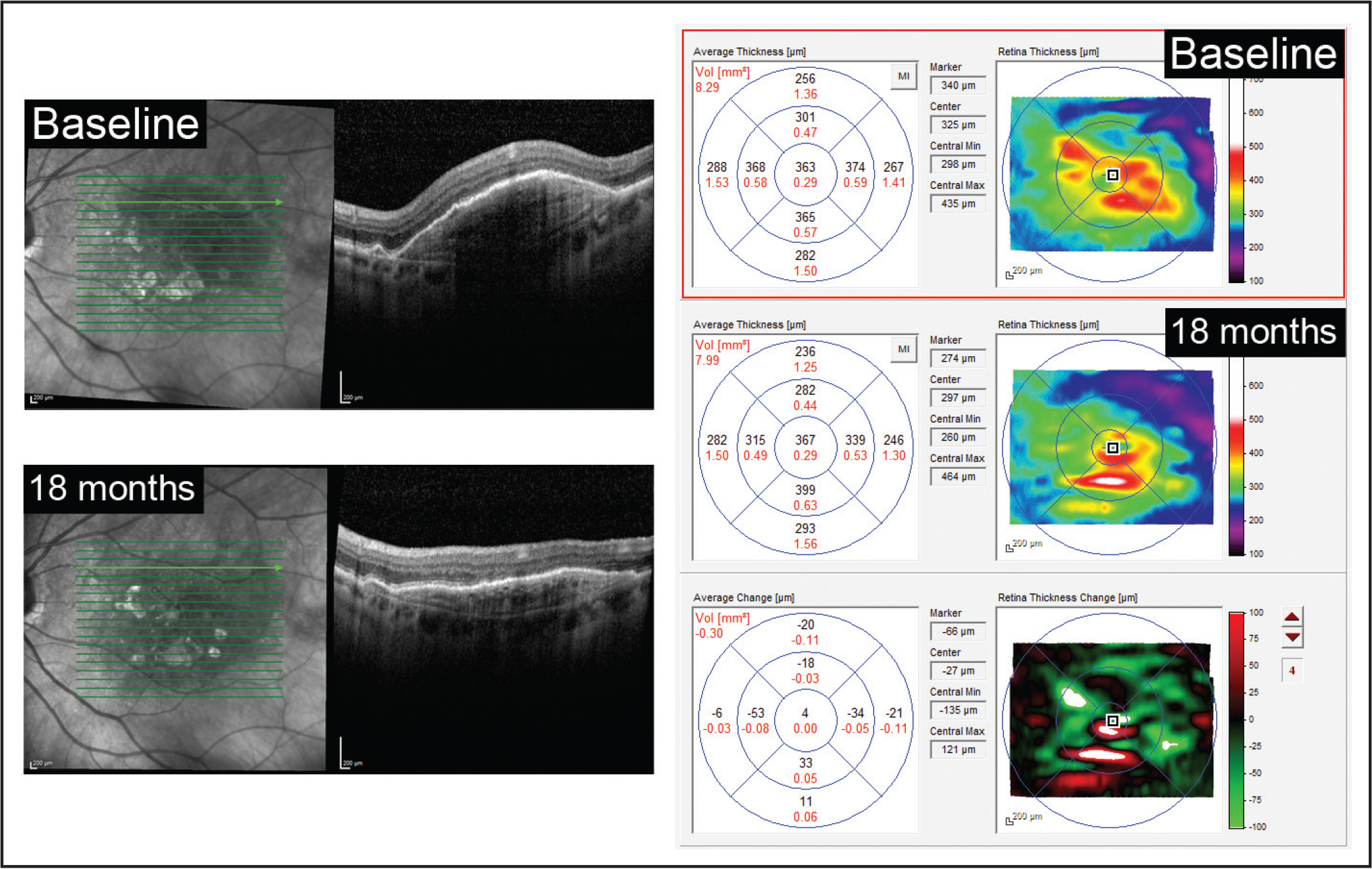 A 78-year-old woman with neovascular age-related macular degeneration and persistent pigment epithelial detachment (PED) despite 19 prior ranibizumab injections over 20 months before transitioning to aflibercept. After 15 aflibercept injections, there was a significant reduction in PED volume from 2.95 mm3 to 2.46 mm3. PED height reduced from 600 µm to 219 µm, and diameter increased from 4,392 µm to 5,074 µm, demonstrating a flattening of the PED. Central foveal thickness remained stable from 366 µm to 371 µm, and macular volume reduced from 8.29 mm3 to 7.99 mm3. BCVA was preserved at 20/40.