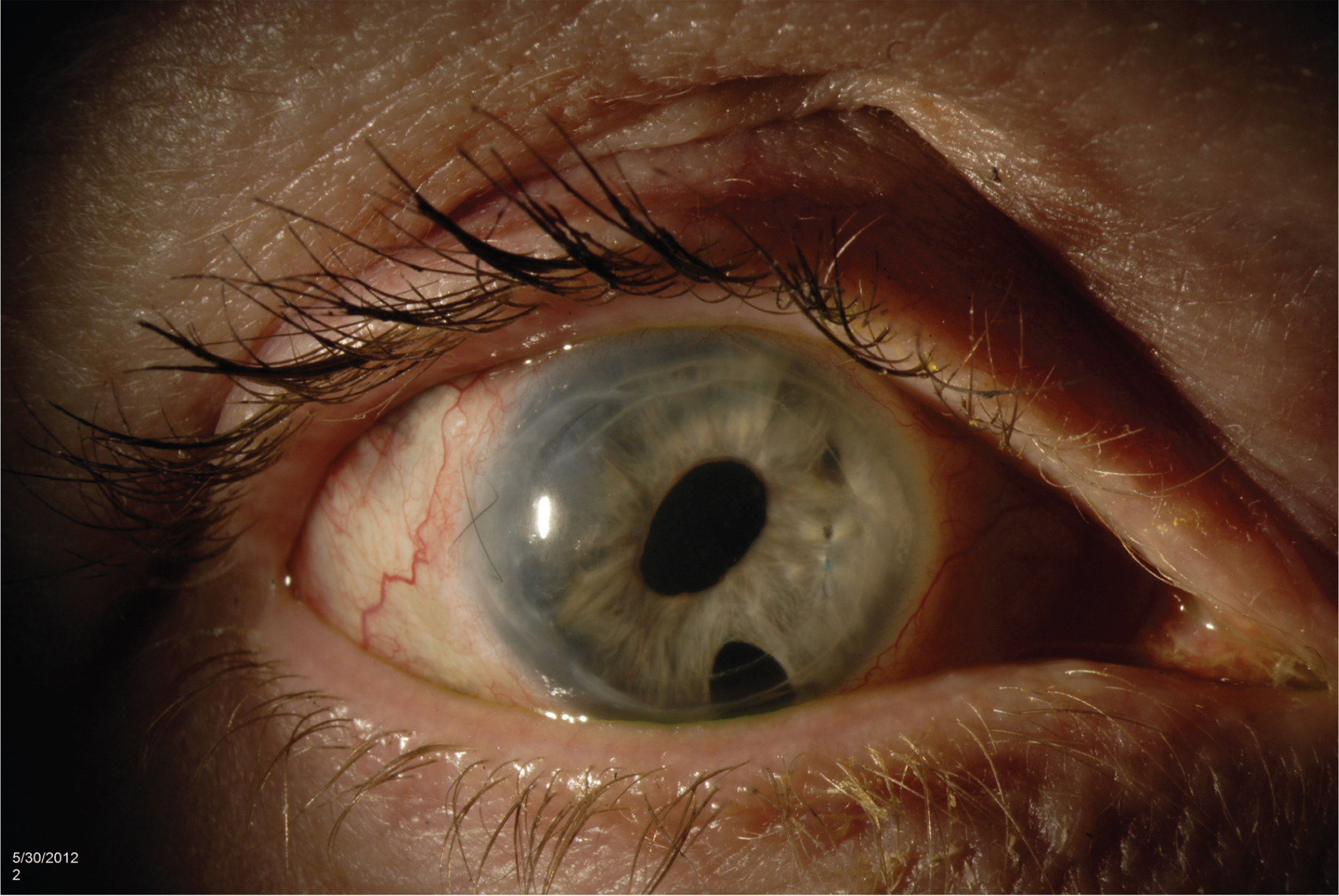 Postoperative photograph after removal of intravitreal dexamethasone implant. Note resolution of corneal edema. Intraocular pressure had returned to physiologic levels.