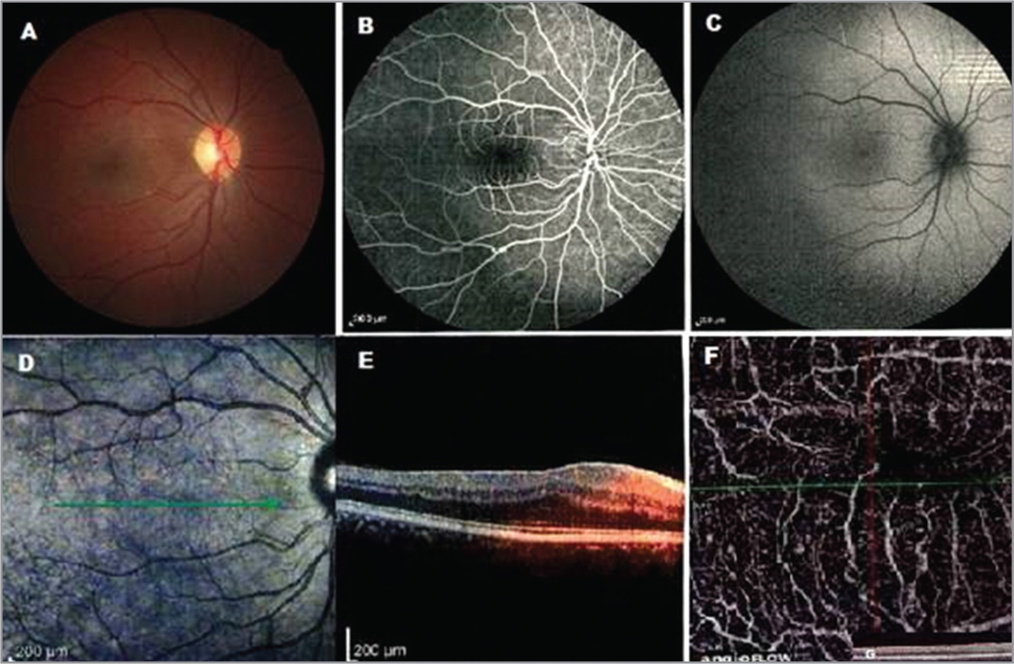 Multimodal imaging of a 22-year-old man with unilateral foveal hypoplasia. (A) Fundus photograph of the right eye showed no foveal reflex. (B) Fundus fluorescein angiography showed lack of a foveal avascular zone (FAZ). (C, D) Fundus autofluorescence and infrared imaging with equivocal findings. (E) Spectral-domain optical coherence tomography (SD-OCT) reveals a shallow foveal pit and continuity of inner retinal layer. (F) OCT angiography with an extremely small FAZ in the superficial capillary plexus.
