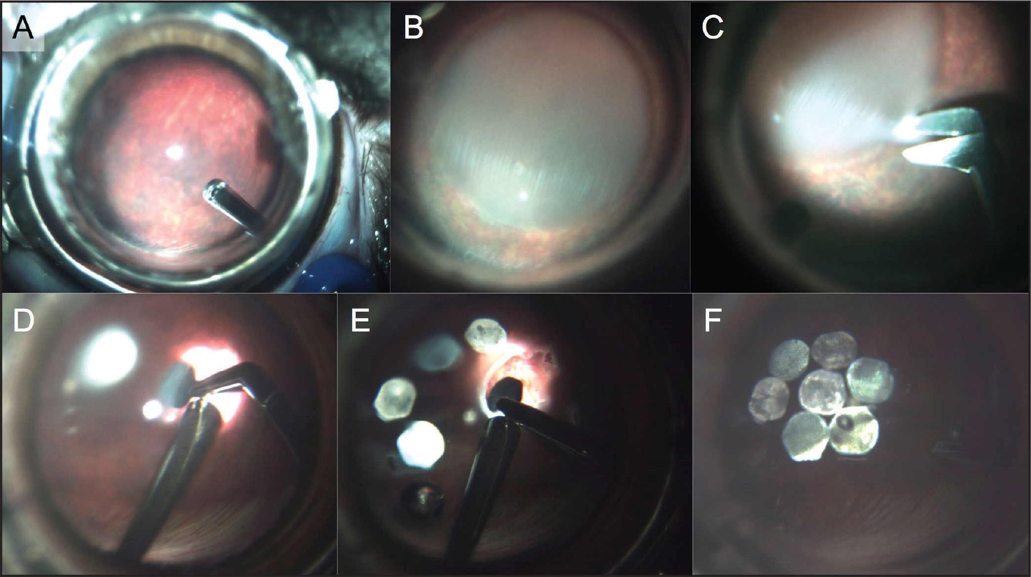The surgical procedure. Vitrectomy (A) is followed by retinal detachment with fluid injection (B). A small (1.5 mm) retinotomy (C) allows insertion of the modules in subretinal space (D–E). Retina is reattached (F) after injection of perfluorocarbon.