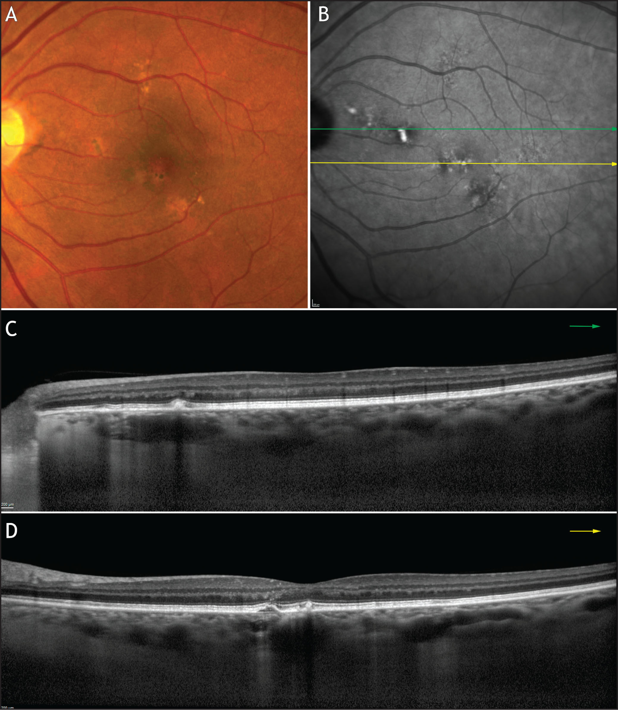 �A;Multimodal imaging of a 63-year-old woman with pachychoroid pigment epitheliopathy. (A) Color fundus photography shows nonspecific perifoveal mottling of the retinal pigment epithelium (RPE), previously attributed to non-neovascular age-related macular degeneration. (B) Near-infrared reflectance (NIR) highlights the RPE alterations. (C, D) Enhanced-depth imaging optical coherence tomography (EDI-OCT) shows large, dilated choroidal pachyvessels directly beneath the RPE abnormalities with loss of Sattler's layer. Multimodal imaging with the combination of color photography, NIR, and EDI-OCT highlights the RPE abnormalities and illustrates a thickened choroid with dilated pachyvessels consistent with a diagnosis of pachychoroid pigment epitheliopathy.�A;