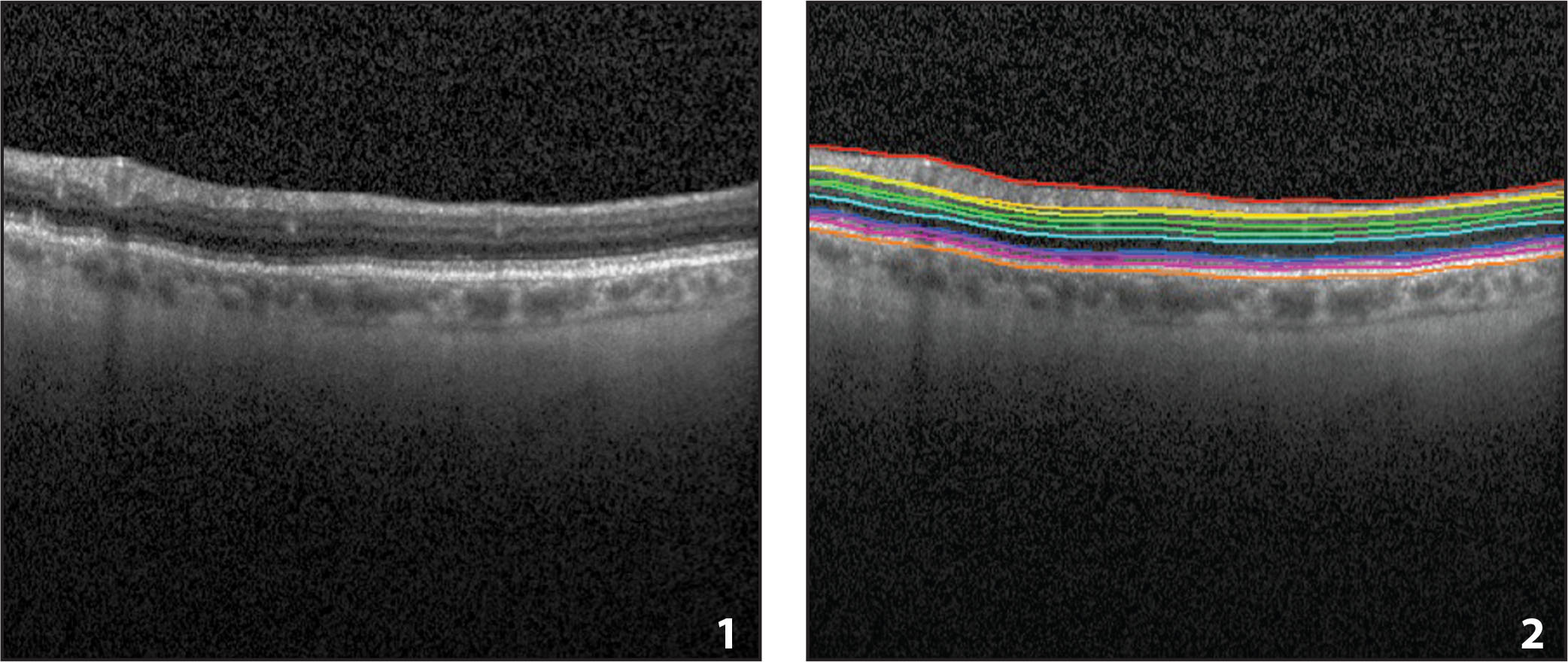 The Iowa Reference Algorithms: (1) One example B-scan from a Spectralis optical coherence tomography image. (2) The same B-scan with the segmentation from the Iowa Reference Algorithms.