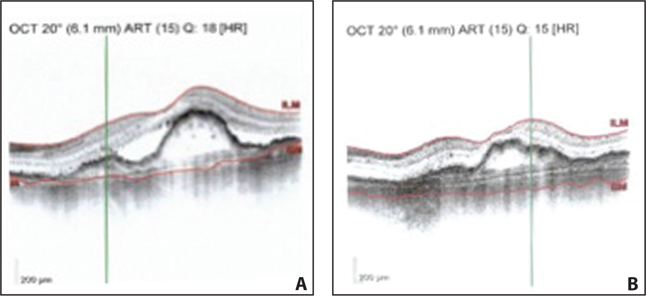 Optical coherence tomography resolution of subretinal fluid and flattening of pigment epithelial detachment in a patient before (A) and after (B) treatment with aflibercept in patient A. Red lines indicate internal limiting membrane and Bruch's membrane as segmented by the Iowa Reference Algorithms respectively.
