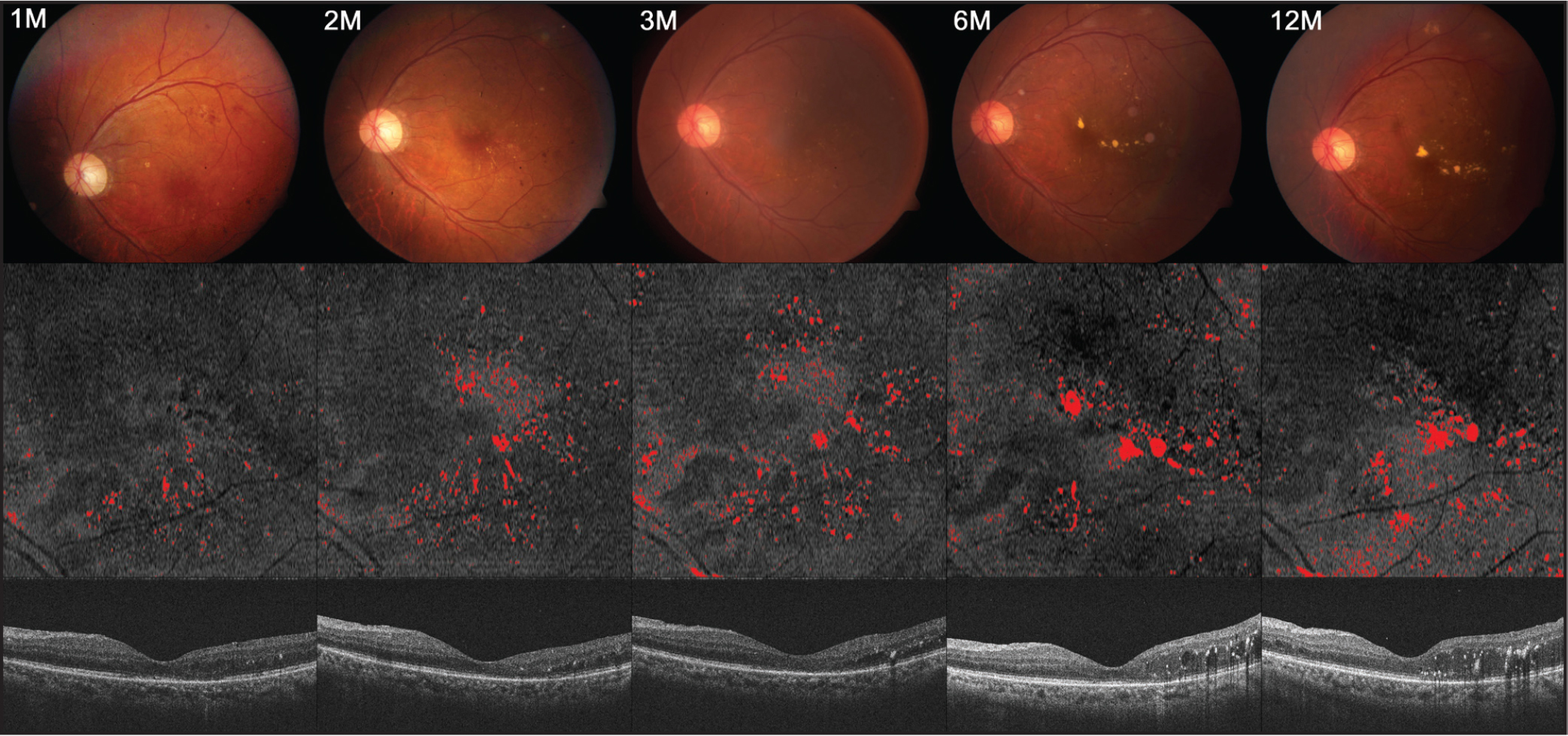 Serial changes in en face outer nuclear layer (ONL) slab hard exudates (HEs) after intravitreal ranibizumab treatment: a 60-year-old male patient with cystoid macular edema. Color fundus images (top), en face ONL slab images indicated with HEs area in red (middle), and cross-sectional images of central subfield corresponding to the en face image (bottom). The area fraction ONL HEs in en face ONL slab images are 1.36% at month 1, 2.95% at month 2, 3.49% at month 3, 3.61% at month 6, and 3.82% at month 12.