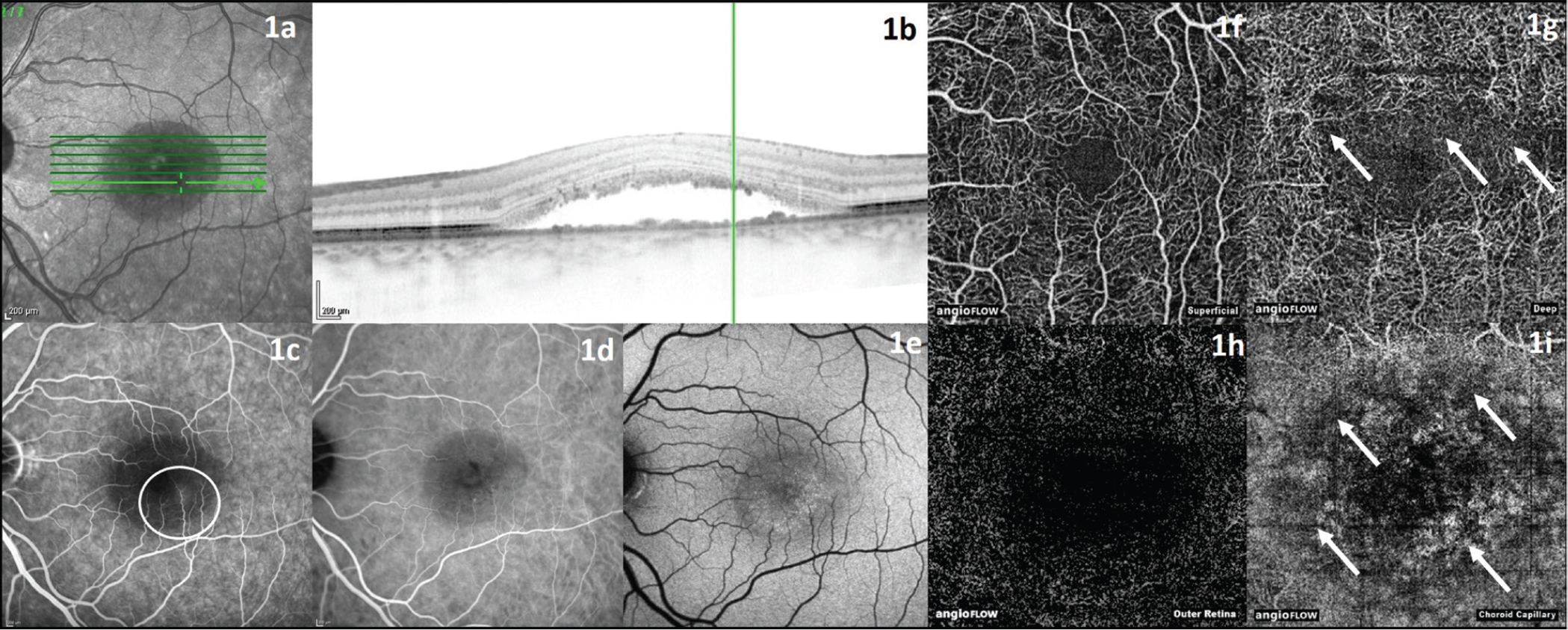 Left eye of a 37-year-old male patient with acute central serous chorioretinopathy. (A, B) Infrared and optical coherence tomography (OCT) image showing retinal detachment. (C) Fluorescein angiography image with leakage point (white circle). (D) Indocyanine green angiography image: Area with detached retina is discernable from attached retina, leakage point is not clearly visible. (E) Fundus autofluorescence image with discernable detached retina. (F) OCT angiography (OCTA) image of superficial retinal vessels. (G) OCTA image of deep retinal vessels with rarefication of vessels (white arrows). (H) OCTA image of outer retina. (I) OCTA image of choroid capillaries with abnormal flow pattern in the perifoveal region (white arrows).