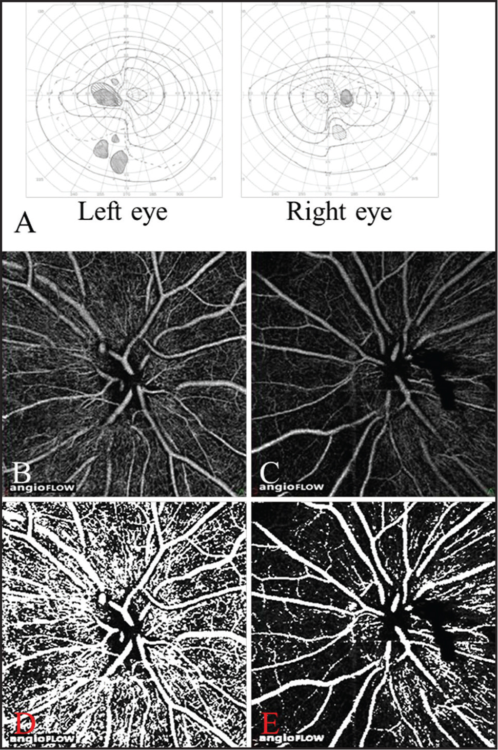 Visual field (VF) findings and optical coherence tomography (OCT) angiograms in Case 2. A 67-year-old female patient with craniopharyngioma. The patient underwent tumor resection 12 months prior to this study. VF findings of Goldmann perimetry (A). Temporal VF defects were detected in both eyes and the VF defect in the left eye was more severe than the right eye. OCT angiograms of the disc of the right eye (B) and of the left eye (C). Binarized OCT angiograms of the disc of the right eye (D) and of the left eye (E). The retinal perfusion was especially decreased in the nasal retina corresponding to the quadrants of the VF defects in the left eye.