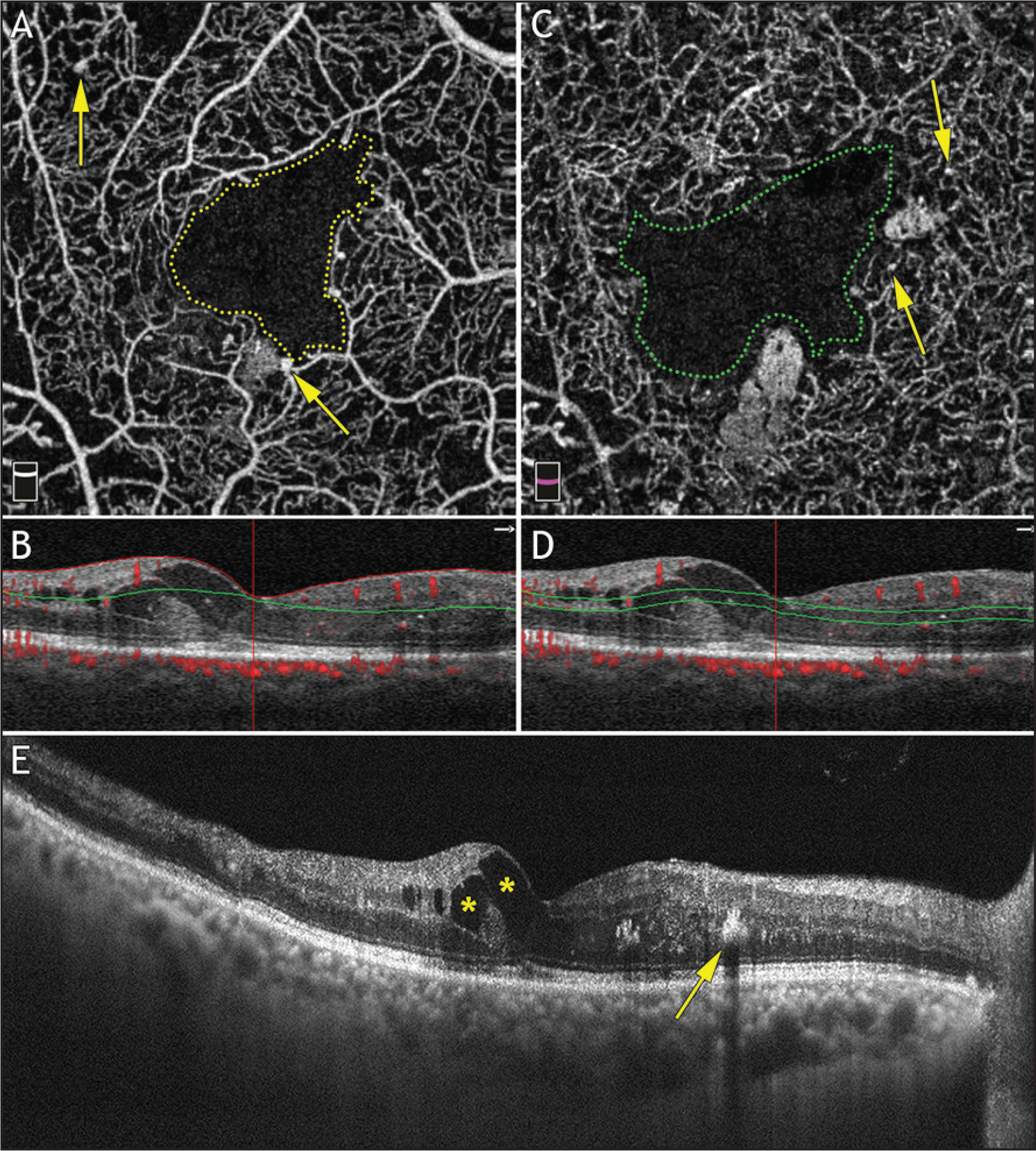 Optical coherence tomography angiography (OCTA) using the spectral-domain Avanti (Optovue, Fremont, CA) with corresponding OCT B-scan of a patient with diabetic macular edema. (A) En face OCTA of the superficial plexus shows foveal avascular zone (FAZ) enlargement (yellow dotted line) and focal vascular dilations that correspond to microaneurysms (yellow arrows). (B) OCT B-scan with superficial retinal plexus segmentation delineated by the red and green lines and OCTA decorrelation signal overlay. (C) Deep plexus segmentation shows further FAZ enlargement (green dotted line) and microaneurysms (yellow arrows). (D) OCT B-scan with deep retinal plexus segmentation delineated by the two parallel green lines. (E) Corresponding high-definition OCT B-scan line shows hyporeflective areas that correspond to intraretinal cysts (yellow asterisks) and a hyperreflective area that corresponds to hard exudates (yellow arrow).