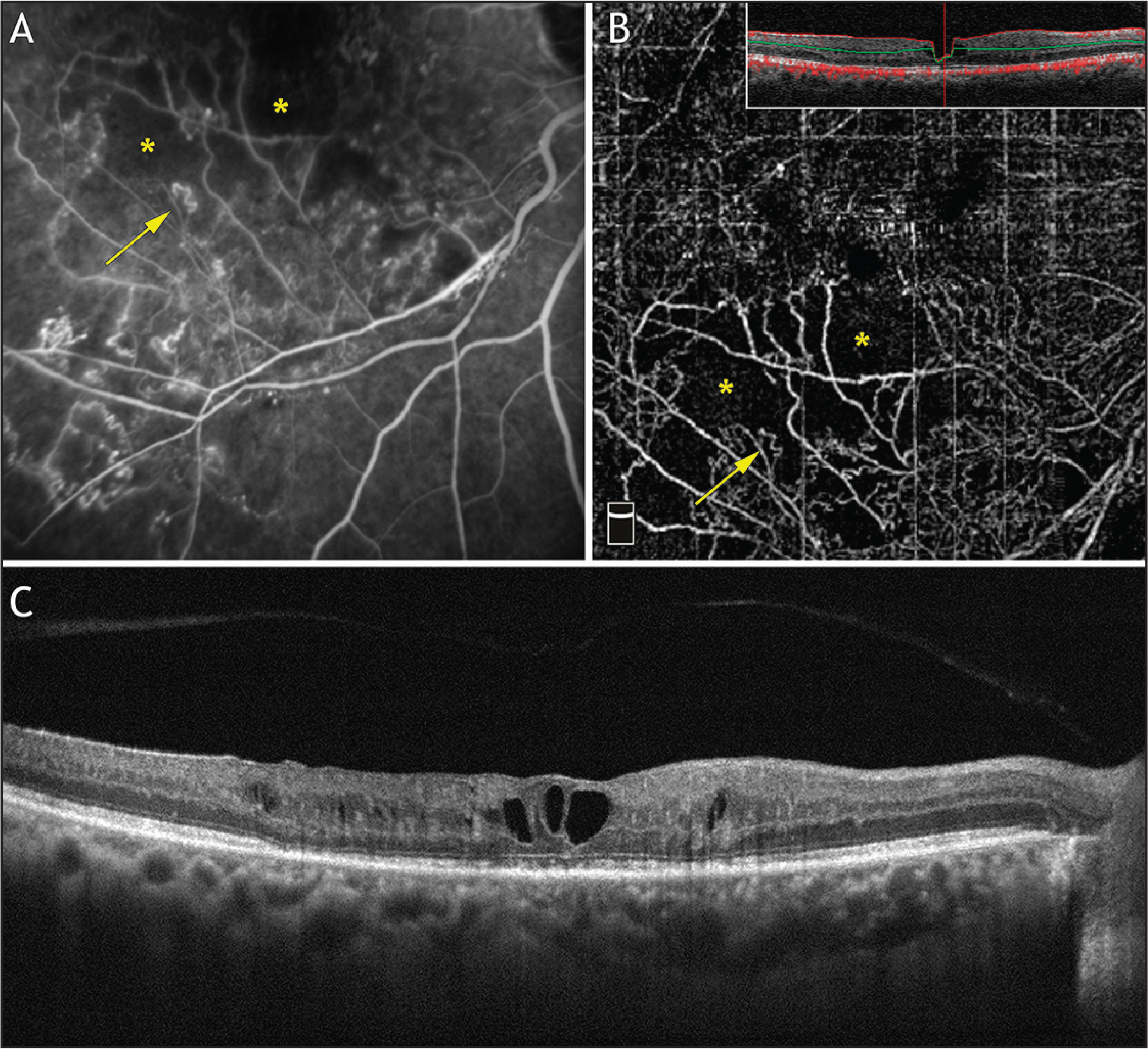 Multimodal imaging analysis of a patient with branch retinal vein occlusion. (A) Fluorescein angiography (FA) shows a nonperfused area (yellow asterisks) and vascular loop (yellow arrow). (B) Optical coherence tomography (OCT) angiography using the spectral-domain Avanti (Optovue, Fremont, CA) of the superficial plexus shows an avascular retina (yellow asterisks) and vascular loop (yellow arrow) seen on FA. Upper right box shows corresponding OCT B-scan with superficial retinal plexus segmentation delineated by the red and green lines. (C) Corresponding OCT B-scan shows a hyporeflective area that corresponds to cystoid macular edema.