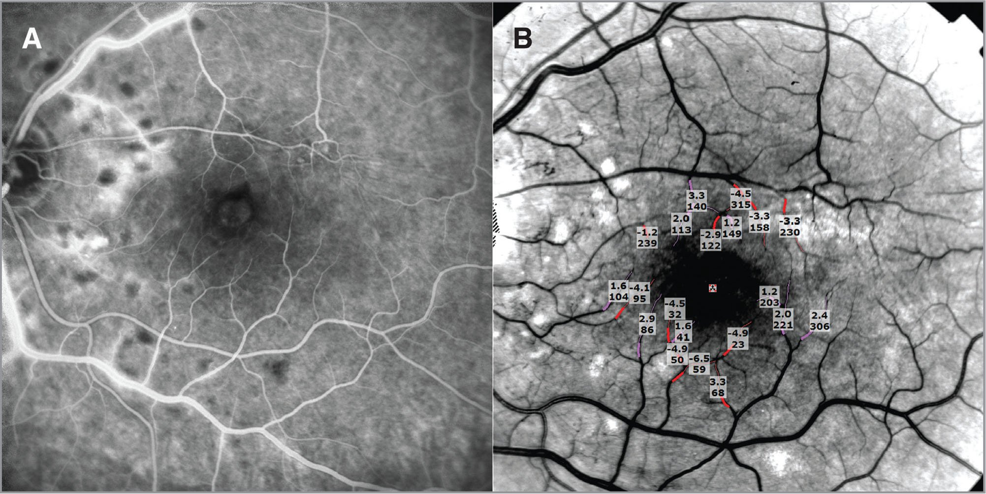A 35° Retinal Functional Imager (RFI) image in Patient 8, who presented with visual loss in the left eye after having had a bevacizumab injection elsewhere, but the diagnosis was not clearly apparent. There was mild macular edema, but no intraretinal hemorrhage and only a suggestion of vascular dilation. He received two more cycles of bevacizumab, with slight visual improvement and resolution of the macular edema. (A) Demonstrates the late recirculation fluorescein angiogram phase that failed to evidence parafoveal ischemic changes. (B) Depicts the RFI vessel segmentation obtained on the same day that showed that mean arteriolar and venular flow velocities were about two-thirds and one-half of the healthy group, respectively.