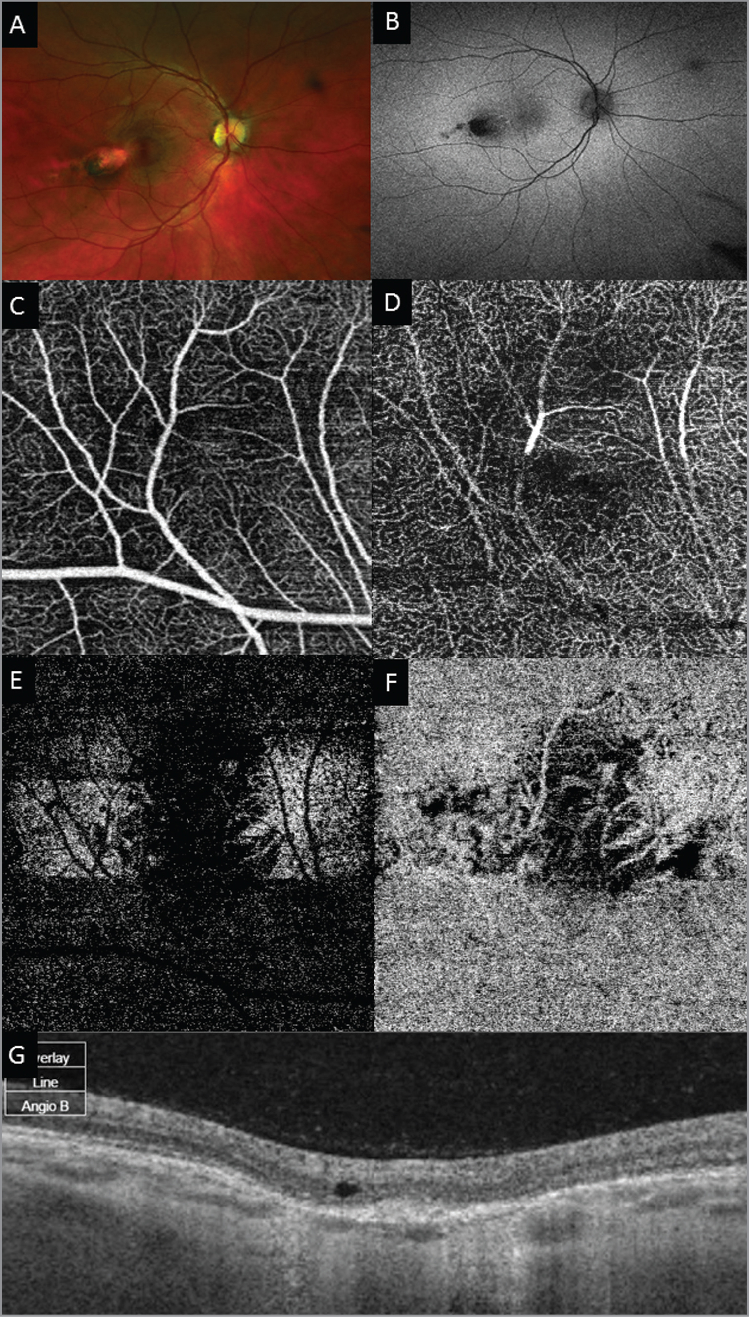 Imaging of torpedo lesion from Case 2. (A) Color fundus photo showing the classical appearance and location of torpedo maculopathy. (B) Fundus autofluorescence of torpedo lesion demonstrating hypoautofluorescence consistent with retinal pigment epithelium loss. (C) Optical coherence tomography angiography (OCTA) segment; superficial plexus of inner retina showing fine vessel loss at the site of the lesion. (D) OCTA segment; deep plexus of inner retina showing fine vessel loss at the site of the lesion. (E) OCTA segment; outer retina demonstrating visibility of the larger choroidal vessels at lesion site. (F) OCTA segment; choriocapillaris demonstrating visibility of the larger choroidal vessels at lesion site. (G) OCT of torpedo lesion.