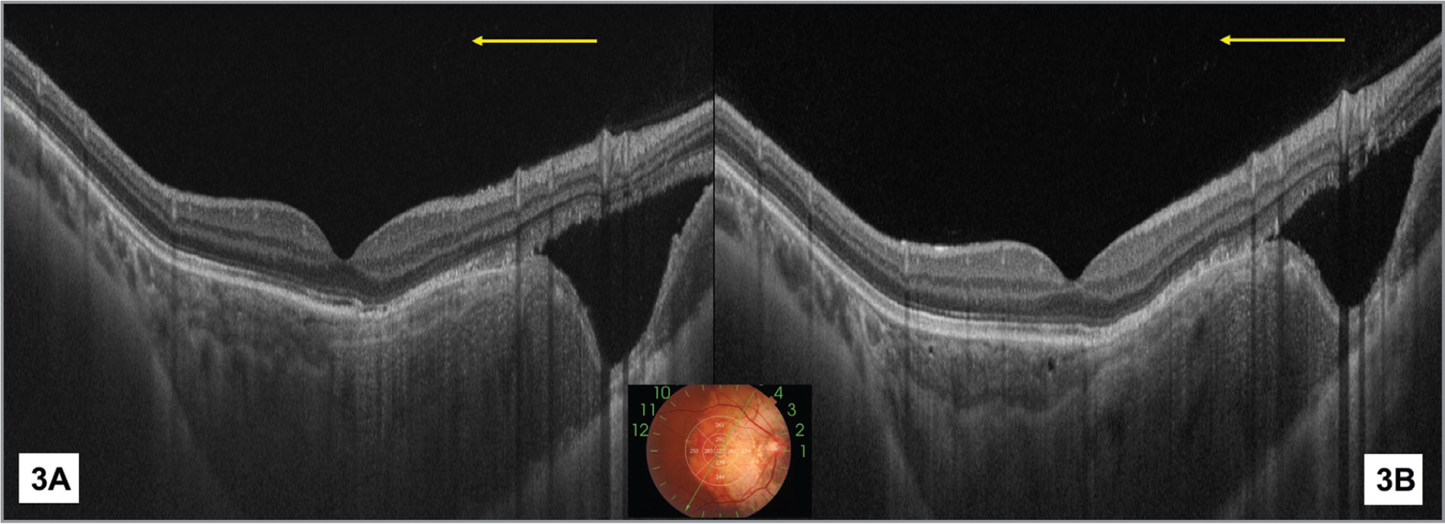 (A) Pre-injection optical coherence tomography (OCT) showing focal deeply excavated choroid adjoining the osteoma edge with neurosensory retina not dipping in this depression. There was no associated staphyloma of the sclera. (B) Post-injection OCT showed no difference in the depth of excavation, signaling it to be a preexisting structural abnormality.