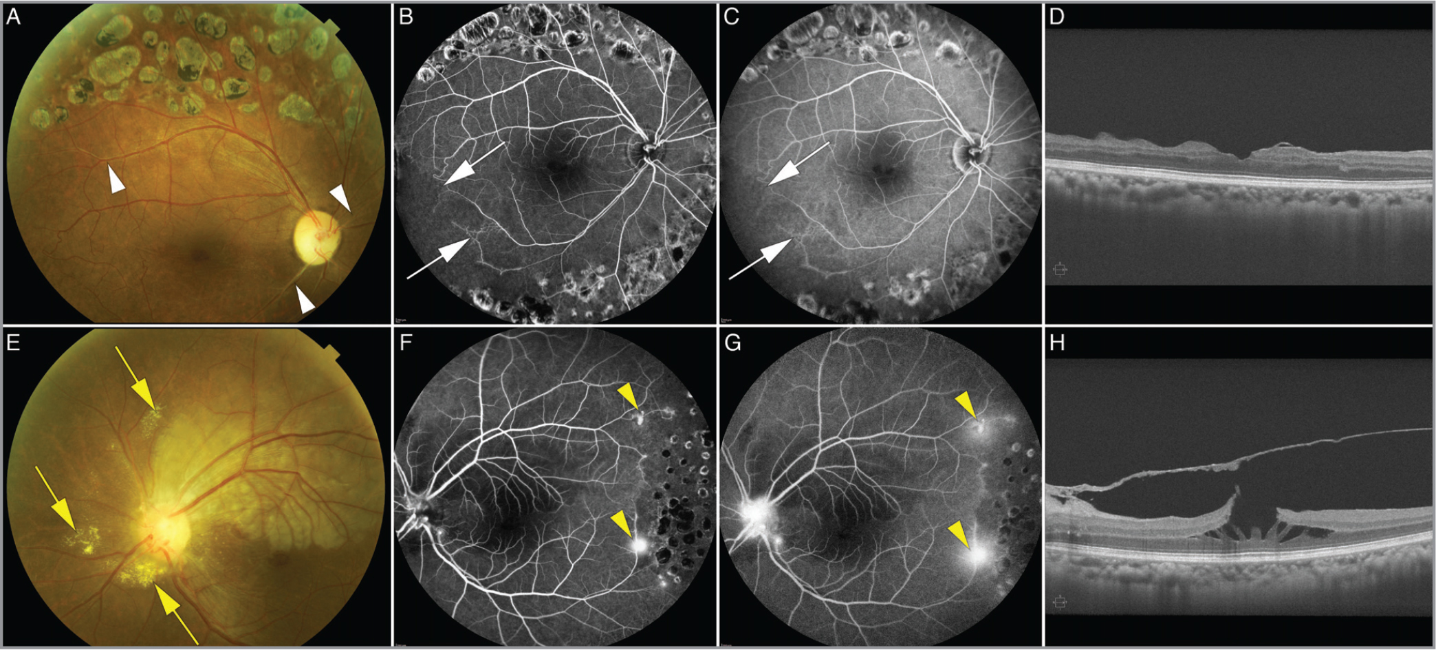 Multimodal retinal imaging from June 2015 when the patient presented with an acute branch retinal artery occlusion (BRAO) in the left eye. (A) Color fundus photograph of the right eye showing retinal striae, inferior altitudinal disc pallor, gliosis of aneurysms proximal to the optic disc, stenosis in a superonasal and inferotemporal vessel, retinal vein sheathing (white arrowheads), and previous panretinal photocoagulation (PRP). (B,C) Intermediate-phase and late-phase fluorescein angiography (FA) of the right eye showing retinal ischemia with capillary nonperfusion, pruning, and tortuosity of vessels in the inferotemporal quadrant (white arrows) and shunt vessels and anastomotic vessels between superotemporal and inferotemporal circulations consistent with an old BRAO. Signs of previous PRP are visible. (D) Spectral-domain optical coherence tomography (SD-OCT) B-scan of the right eye centered on the fovea demonstrating epiretinal membrane (ERM) and thinning of the inner retina. (E) Color fundus photograph of the left eye showing dilated vessels proximal to the optic nerve head, retinal whitening along the superotemporal arcade surrounding an acute BRAO in the superior macula, peripapillary hard exudates (yellow arrows), optic disc edema, and retinal vein sheathing. (F,G) Intermediate-phase and late-phase FA of the left eye showing dilated vessels proximal at the optic nerve head, superotemporal and inferotemporal aneurysms, peripheral capillary nonperfusion, two areas of neovascularization temporally (yellow arrowheads), and superotemporal blockage of dye secondary to the retinal thickening and swelling due to an acute BRAO. Signs of previous PRP are visible. (H) SD-OCT B-scan centered on the fovea of the left eye showing cystic retinal changes secondary to a lamellar hole and an ERM.