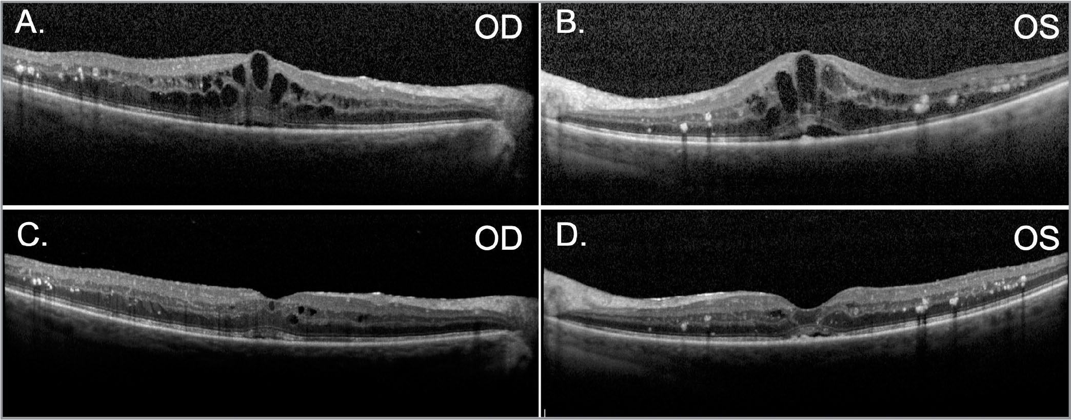 Spectral-domain optical coherence tomography demonstrating bilateral diffuse diabetic macular edema prior to (A, B) and 2 weeks following a single intravitreal injection of aflibercept (C, D) in only the left eye, with a marked bilateral response.