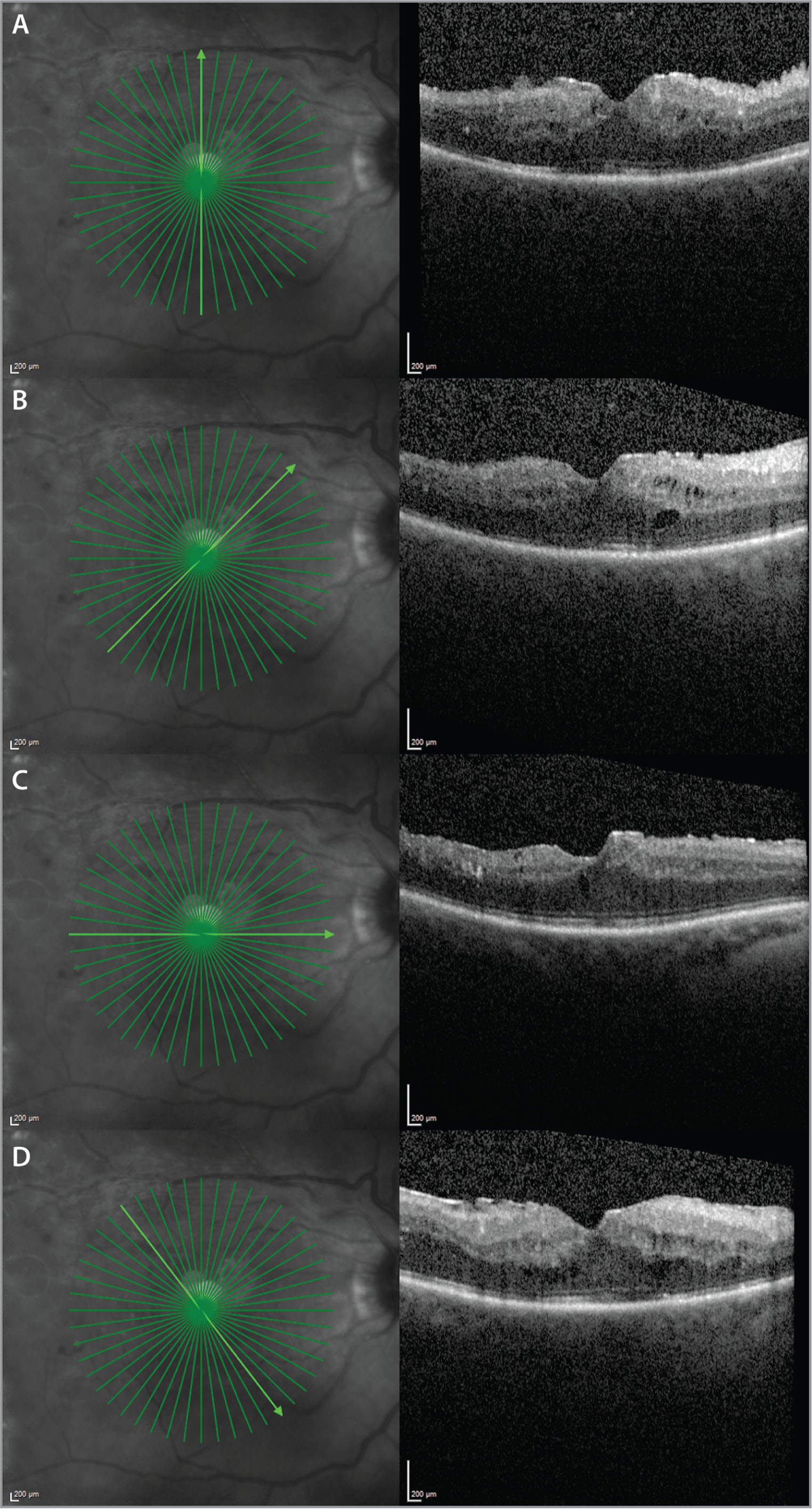Postoperative radial optical coherence tomography scans in a 61-year-old female with a tractional retinal detachment associated with proliferative diabetic retinopathy who underwent repair with vitrectomy, endolaser, and epiretinal membrane peel but no internal limiting membrane peel. Postoperative images at 2 months following surgery show release of all traction on the fovea on multiple radial cuts.