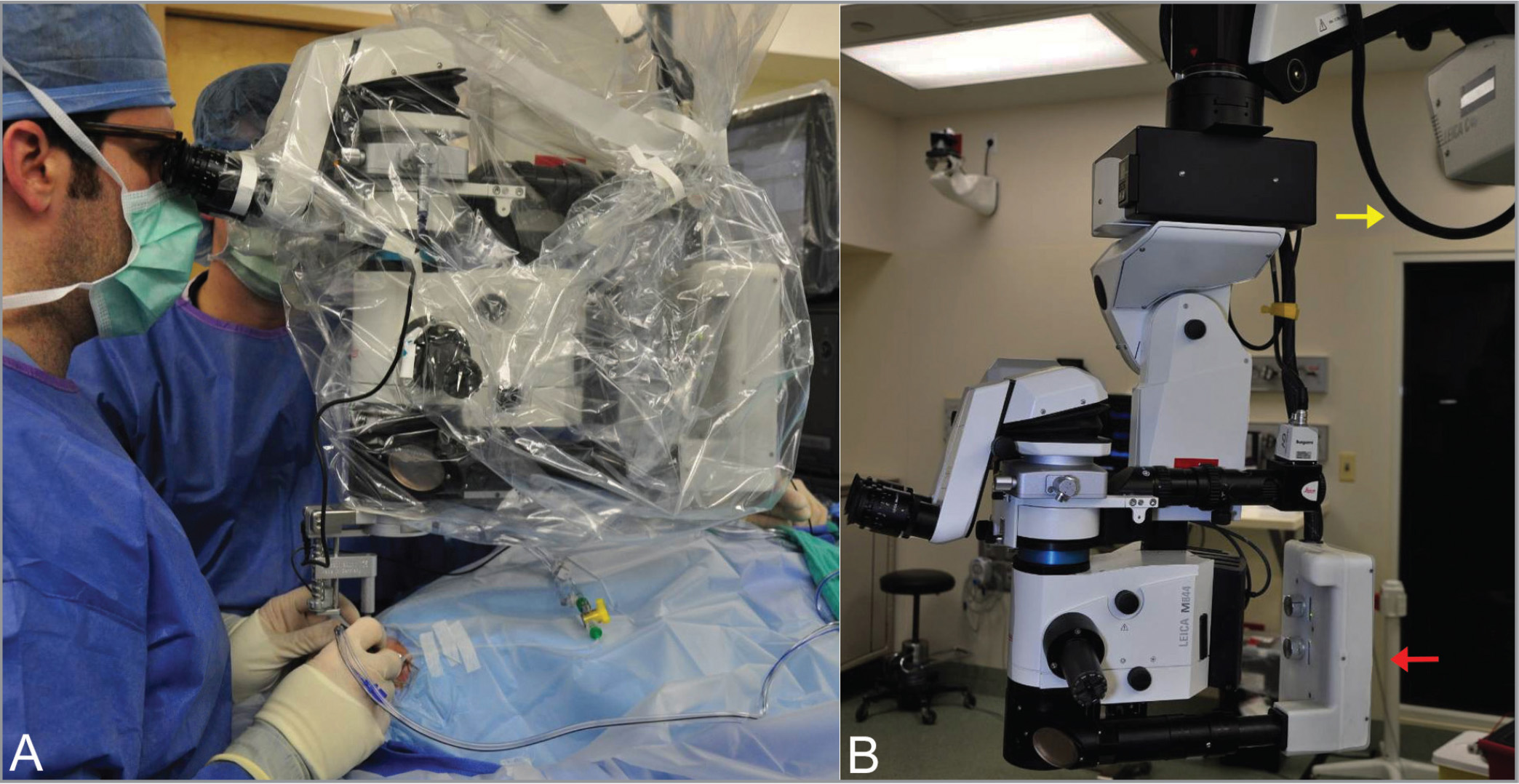 Photograph of the operating microscope and Bioptigen EnFocus intraoperative optical coherence tomography system. (A) Draped system. (B) Undraped system, showing EnFocus system (red arrow) and connecting cable (yellow arrow).