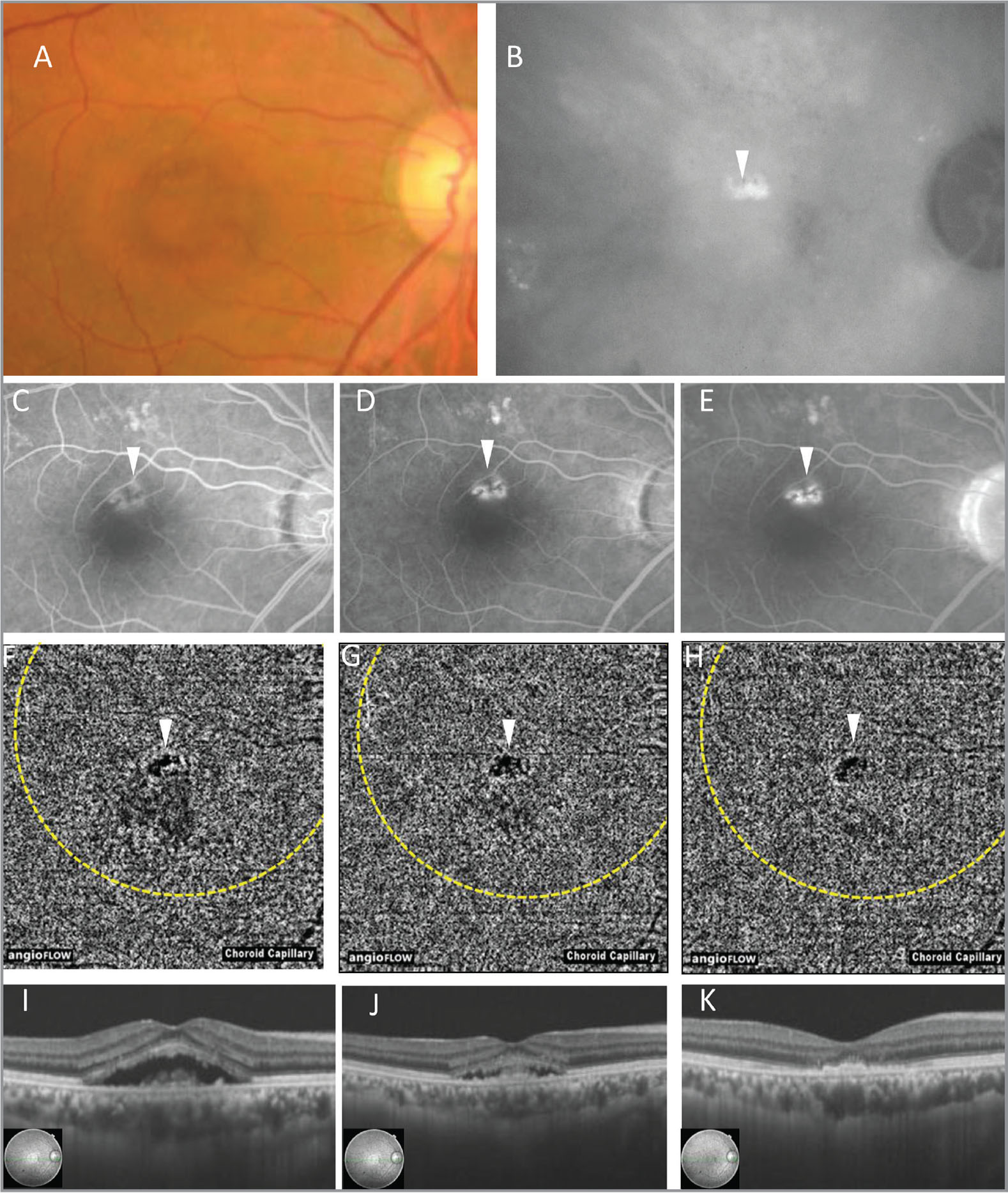 A;Multimodal imaging of the right eye of Case 1. (A) Color fundus photograph shows serous retinal detachment and pigment epithelial detachment (PED) at the macula. (B) Middle phase of indocyanine green angiography shows hyperfluorescence at the macula. The PED is located at the upper fovea (white arrowhead). (C–E) Fluorescein angiography in early to middle phase (C), middle phase (D), and late phase (E). The PED is located at the upper fovea (white arrowhead). (F–H) Optical coherence tomography angiography (OCTA) before photodynamic therapy (PDT) (F), 1 week after PDT (G), and 1 month after PDT (H). The PED is located at the upper fovea (white arrowhead). The PDT spot area is encircled by yellow dots. Before PDT, focal high-intensity lesion indicating abnormal choroidal vessels and flow void lesion are observed at the choriocapillaris layer (F). These findings are diminished progressively at 1 week and 1 month after PDT (G, H). (I–K) OCT before PDT (I), 1 week after PDT (J), and 1 month after PDT (K).