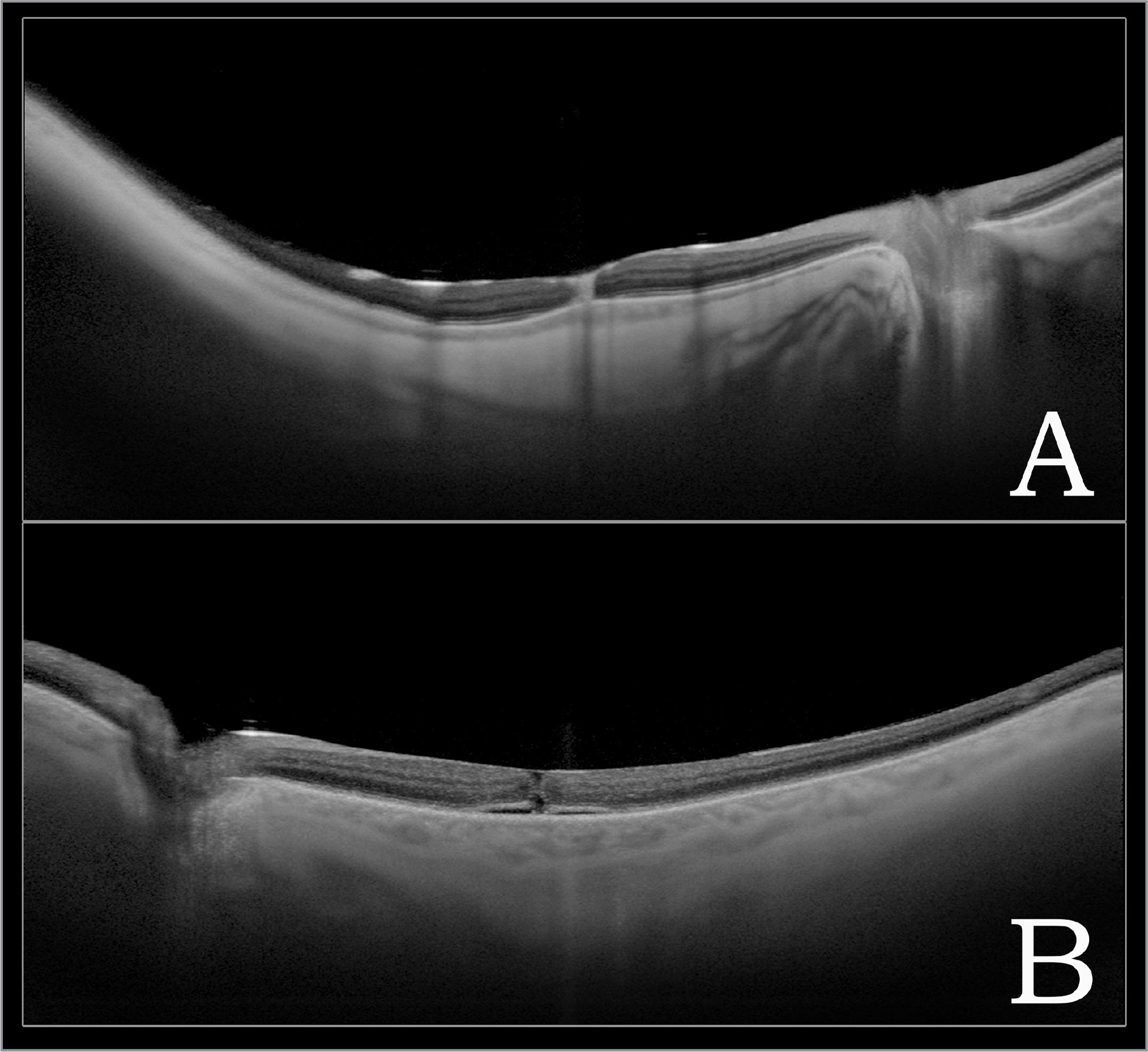 Representative swept-source optical coherence tomography image of macular hole (MH) closure statuses on postoperative day 1. (A) Complete MH closure marked by apposition of all retinal layers at the central vertical hyperreflective line, presumably the site of tissue regeneration. (B) Partial MH closure showing physical approximation of the retinal layers without complete apposition of the tissue.