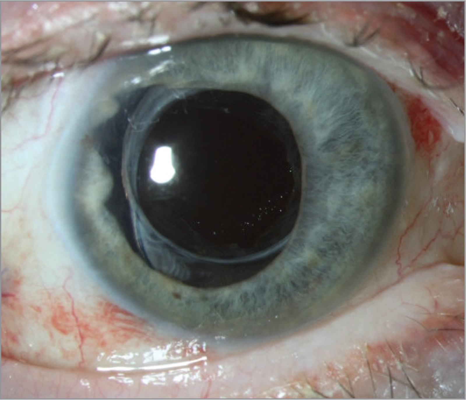 Slit-lamp photograph of the right eye showing clearance of the visual axis at the postoperative month 1 visit.