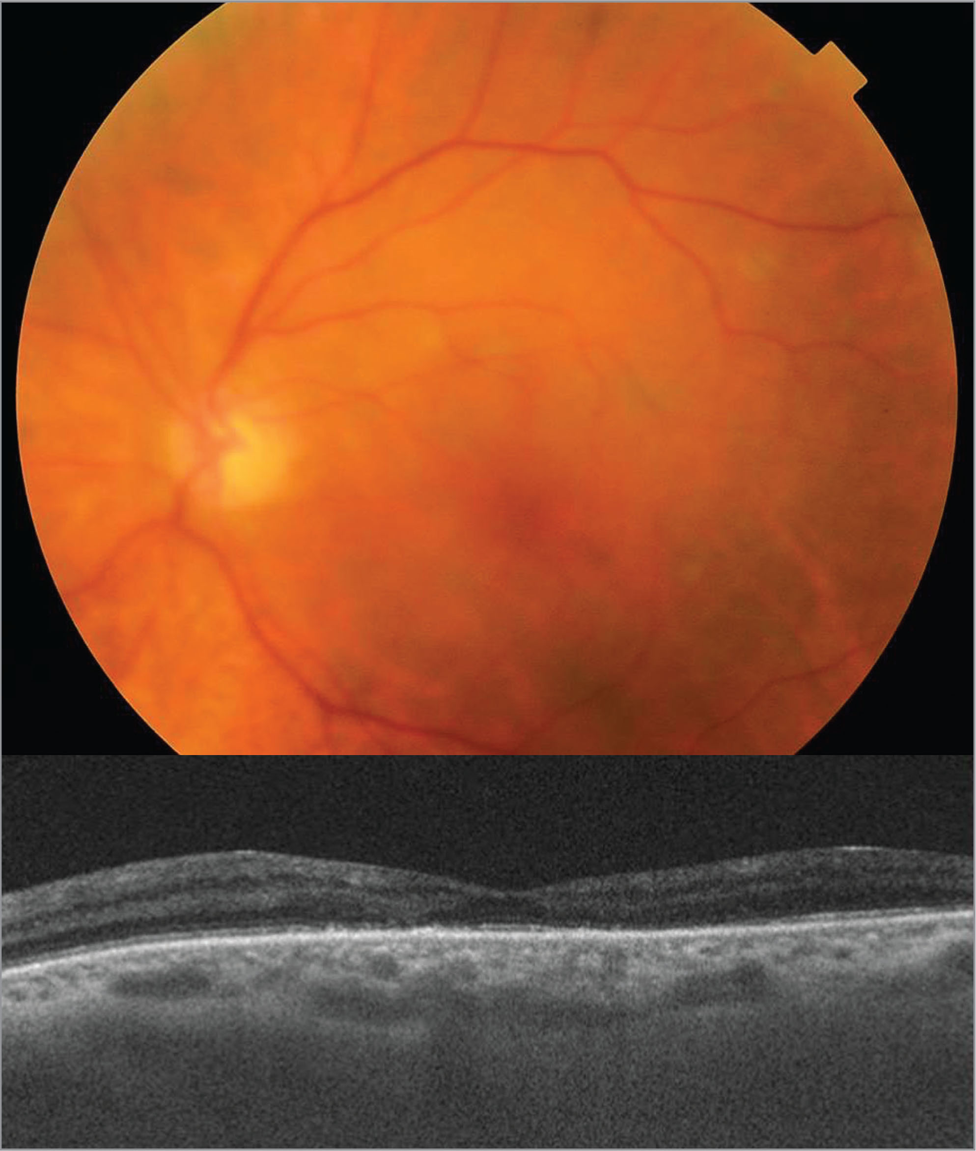 (A) Fundus photograph of the left eye 1 month after initial presentation shows resolution of retinal whitening. (B) Spectral-domain optical coherence tomography shows complete resolution of the hyperreflective lesions with residual diffuse thinning of the inner and outer plexiform retinal layers, as well as persistent alterations of the outer retina.