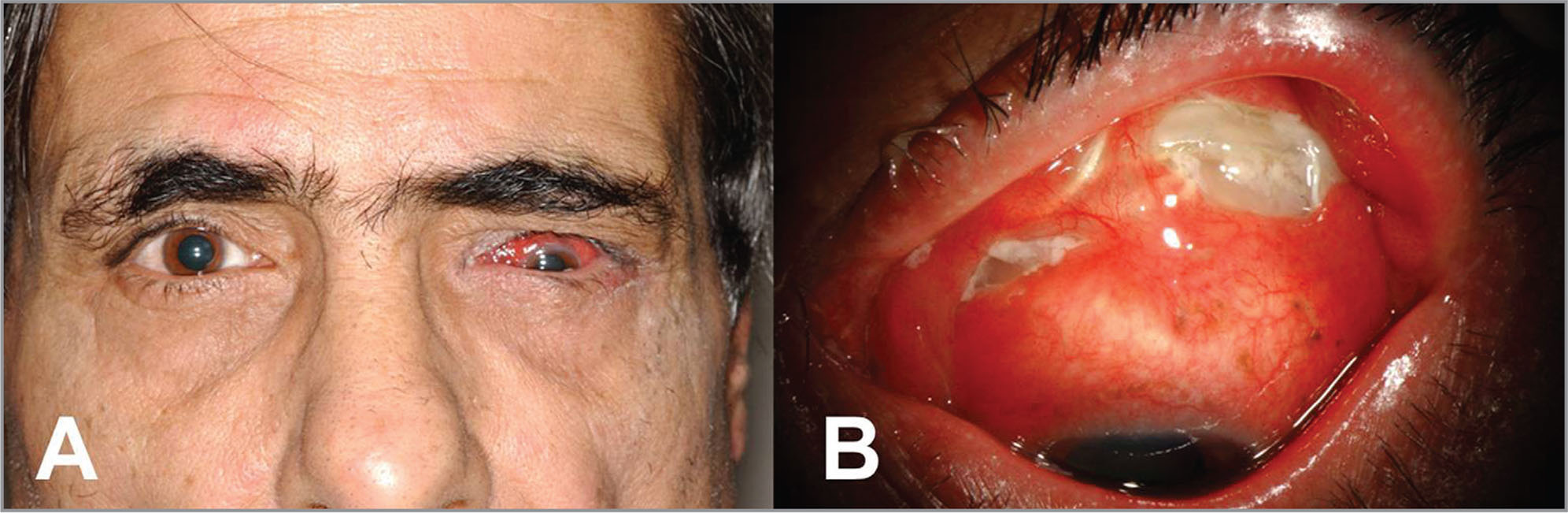 (A) Patient with left hypotropia. (B) Exposed scleral buckle with purulent discharge.