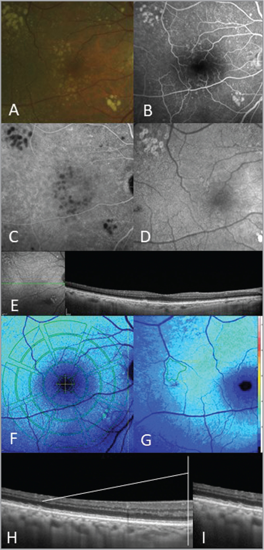 An illustrative case of the right eye of an 81-year-old man with cuticular drusen (CD) phenotype as seen on (A) color photography, (B) fluorescein angiography, (C) indocyanine green angiography, and (D) conventional fundus autofluorescence. Large drusen interspersed with CD. (F) A cross-sectional enhanced depth imaging optical coherence tomography (OCT) B-scan enables a combined analysis with quantitative fundus autofluorescence (qAF)-8 values obtained or (G) a region-of-interest (ROI)-qAF in CD cluster. (H) The OCT volume and (I) magnified inset of the area of the line scan were registered to the ROI-qAF to permit precise spatial correlation between the two methods.
