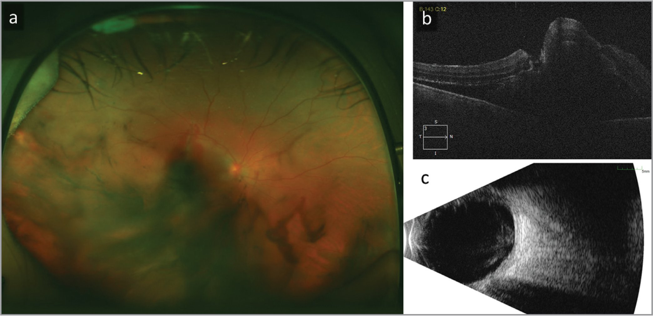 (a) Fundus photo with vitreous, subretinal, and subretinal pigmented epithelial hemorrhage. (b) Optical coherence tomography demonstrates macular detachment with a possible full-thickness macular hole. (c) B-scan ultrasonography displaying mobile vitreous opacities with elevated clumped opacities in the macular but without rhegmatogenous retinal detachment.