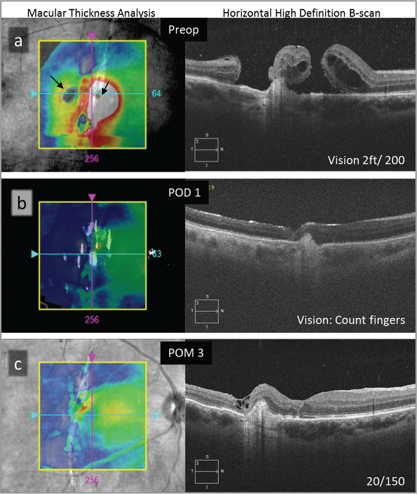 (a) Preoperative optical coherence tomography (OCT) demonstrates two macular holes overlying a choroidal rupture. (b) OCT under C3F8 on postop day 1. (c) Optical coherence tomography 3 months after surgery.
