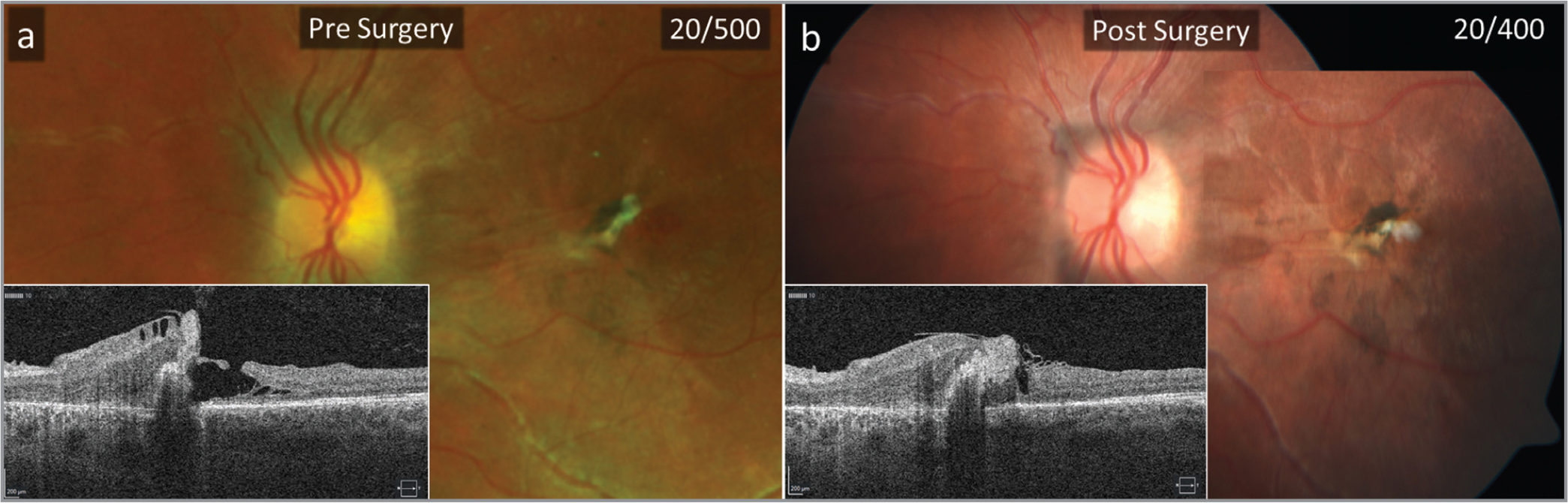 (a) Fundus photo and optical coherence tomography (OCT) displaying full-thickness macular hole and pigmented epithelial detachment pre-surgery. (b) Fundus photo and OCT showing hole closure 4 months after surgery.