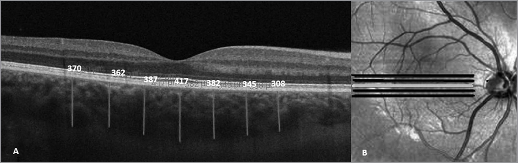 Optical coherence tomography scan showing the choroidal thickness at seven locations (A) and fundus five-line raster photograph (B).