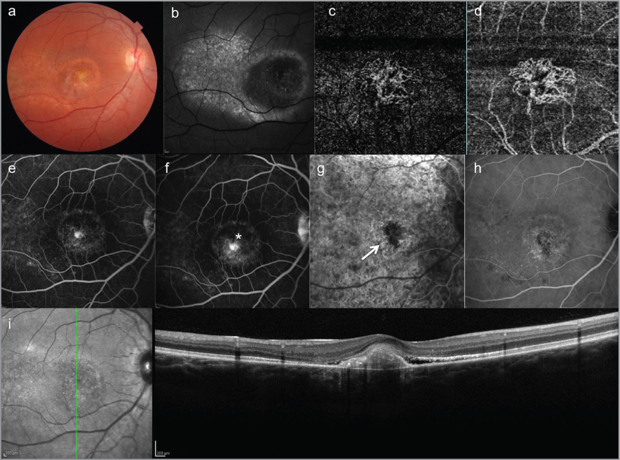 Case 1. Multimodal imaging of autosomal recessive bestrophinopathy of the right eye at presentation. (a) Color fundus photograph. (b) Fundus autofluorescence (FAF) shows a foveal hyperautofluorescent ring with speckled hyper-FAF material temporal to the fovea. (c, d) Optical coherence tomography (OCT) angiography of the outer retina (c) and choriocapillaris (d) shows the presence of the choroidal neovascularization (CNV). (e, f) Fundus fluorescein angiography shows early hyperfluorescence (e) with late leakage (asterisk) of fluorescein (f). (g, h) Indocyanine green angiography shows the presence of the neovascular network (arrow) in the early frame (g) and leakage of indocyanine in the late frame (h). (i) Spectral-domain OCT shows subfoveal ill-defined subretinal hyperreflective material.