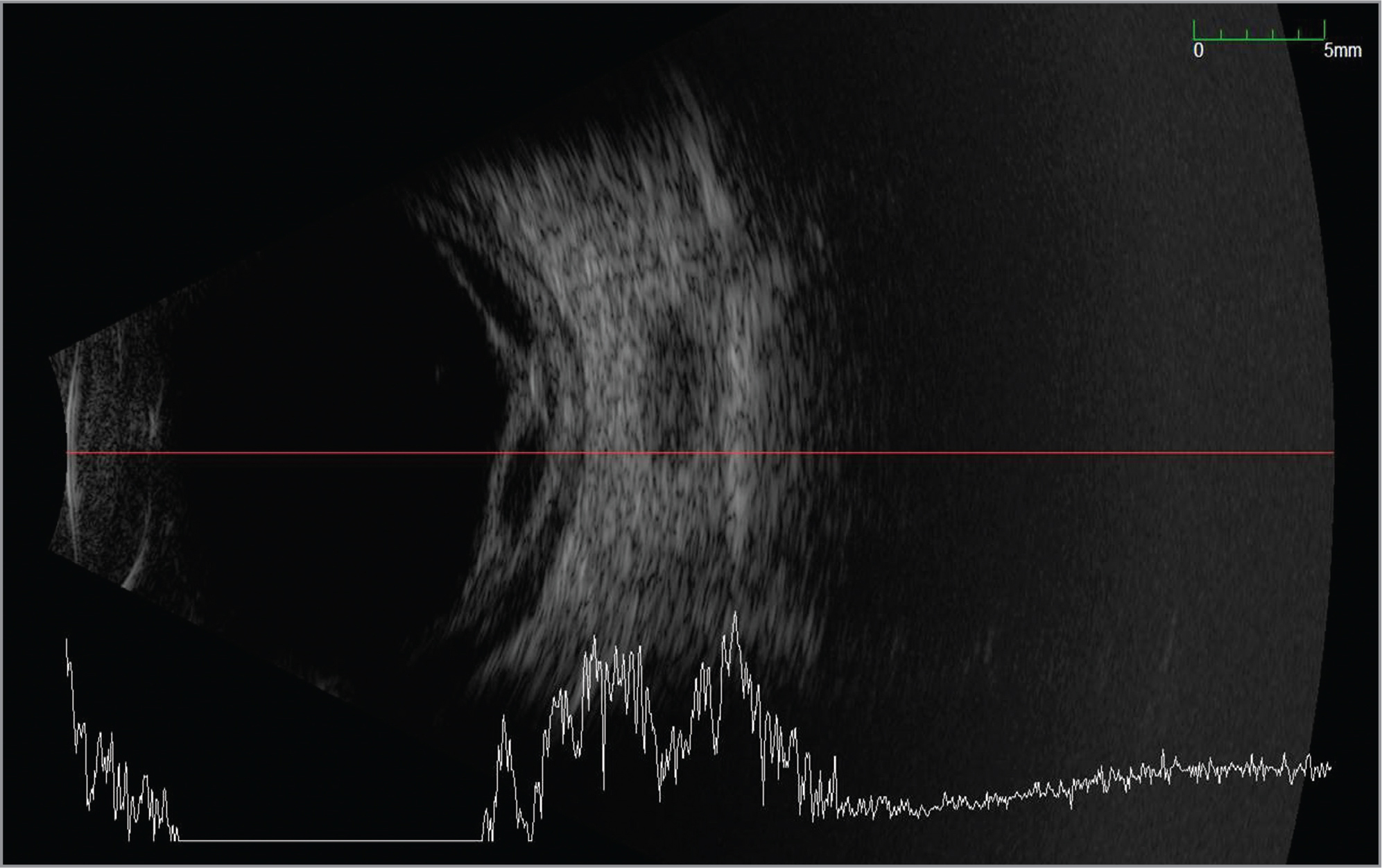 B-scan ultrasonography of the right eye 3 days after bevacizumab injection demonstrating elevation of fibrovascular tissue and choroidal thickening.