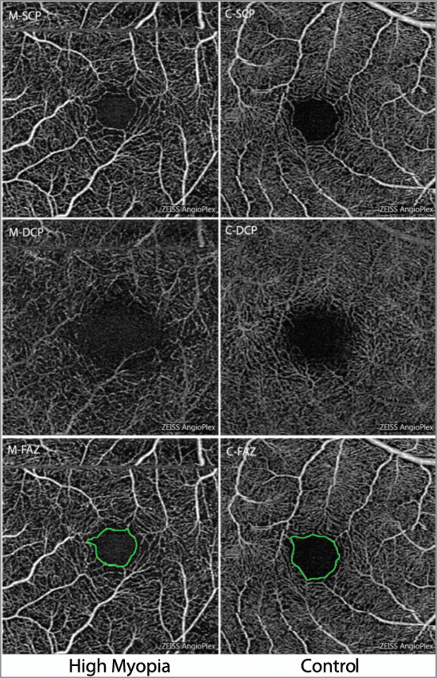 Optical coherence tomography angiography 3 × 3 mm2 scans segmented at the superficial capillary plexus (SCP) (top) and the deep capillary plexus (DCP) (middle). Manual outlining (green) of the borders as foveal avascular zone at the superficial capillary plexus (bottom).