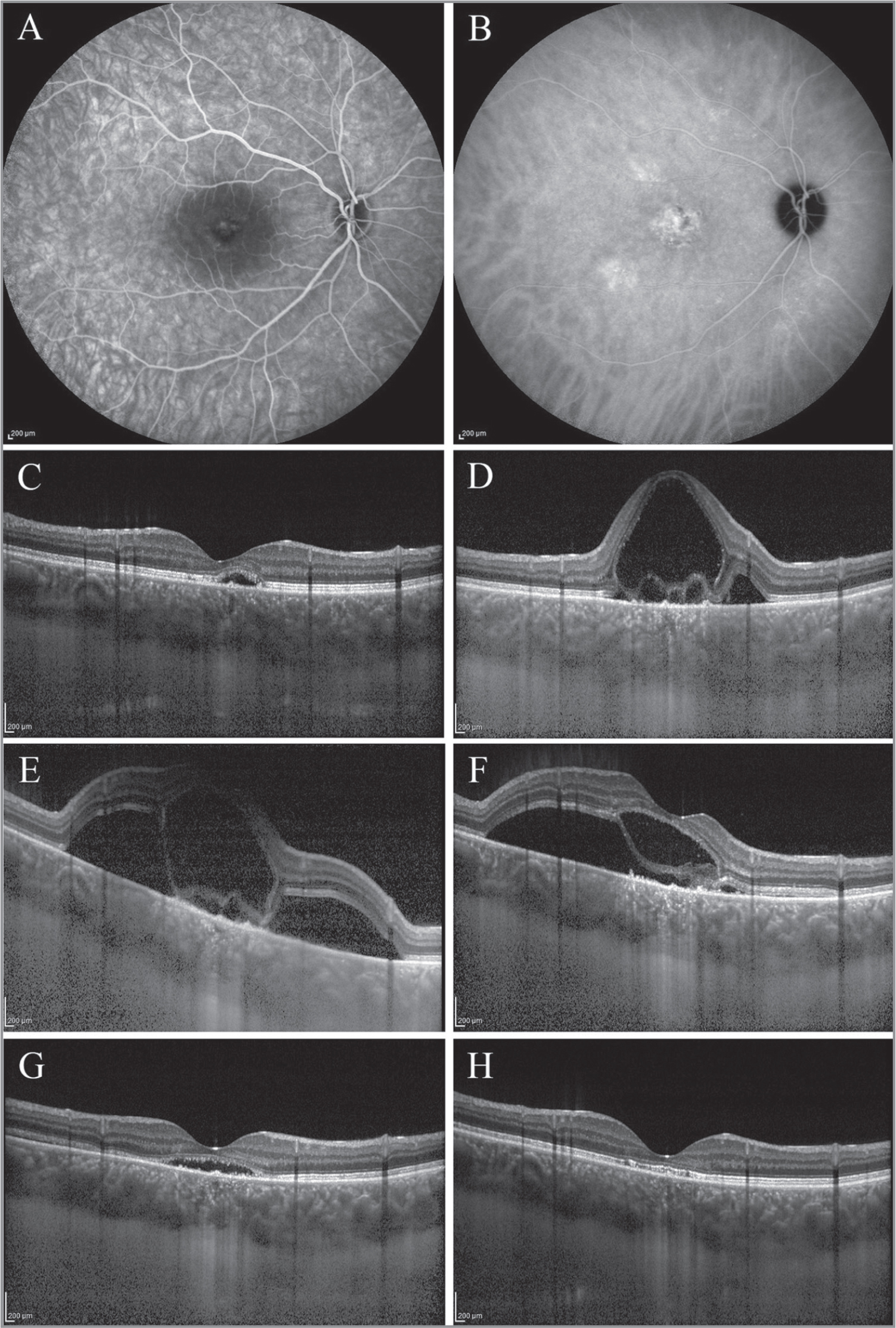 Right eye of a 38-year-old man with a 10-month history of central serous chorioretinopathy. Baseline fluorescein angiography shows leaking points in the foveal area, (A) and indocyanine green angiography shows choroidal hyperpermeability areas (B). Baseline optical coherence tomography image demonstrates subretinal fluid (SRF) and retinal pigment epithelium detachment. The pretreatment central foveal thickness (CFT) was 208 μm, and the subfoveal choroidal thickness (SCT) was 453 μm, with visual acuity (VA) of 20/32 (C). One day after half-time photodynamic therapy, a prompt increase in CFT from 208 μm to 976 μm and in SCT from 453 μm to 560 μm was noted (D). Three days after treatment, persistence of increased CFT (971 μm) and SCT (535 μm) is seen (third row, left) (E). CFT decreased from 971 μm to 515 μm and SCT from 535 μm to 450 μm 1 week after treatment, with VA of 20/50 (F). One month after treatment, CFT was 194 μm and SCT was 391 μm, with VA of 20/32 (G). Complete resolution of SRF and intraretinal fluid, persistence of decreased SCT (402 μm), and improved VA from 20/32 to 20/25 is seen 3 months after treatment (H).