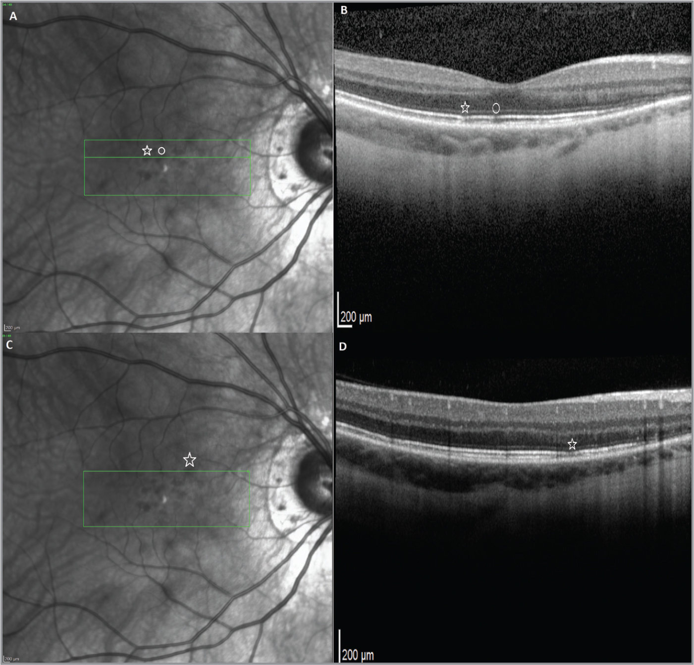 Two years later, infrared radiance (IR) in the right eye (OD) revealed multiple oval-shaped focal patches of decreased reflectance scattered circumferentially in the paramacular region (A, C). These lesions were more numerous in the superior macula and were in different location from areas of decreased reflectance during her initial presentation (Figure 2). Optical coherence tomography (B, D) showed normal foveal contour and inner retinal layers. There were multiple 50 μm to 100 μm focal areas of disruption of the outer segment / retinal pigment epithelium interface with overlying inner segment / outer segment junction attenuation, corresponding to areas of reduced reflectance in the IR image (star and circle). These lesions were located in areas that were affected during her first presentation.