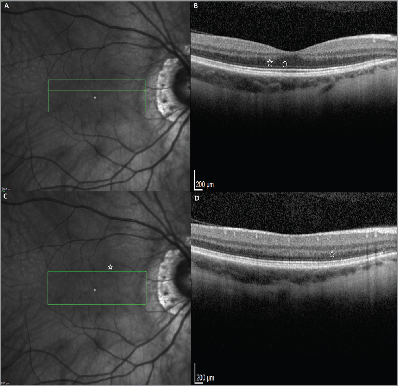 Seven months following the 2-year follow-up, the infrared radiance lesions have resolved (A, B). Many of the outer segment / retinal pigment epithelium interface defects had improved (B) with residual mild disruption of the interface superiorly to the macula (star) (D).