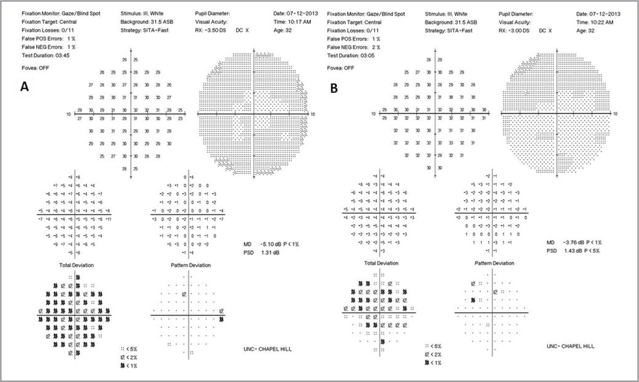 The 10-2 visual field revealed a subtle enlargement of the blind spot in the right eye (A) and was normal in the left eye (B).