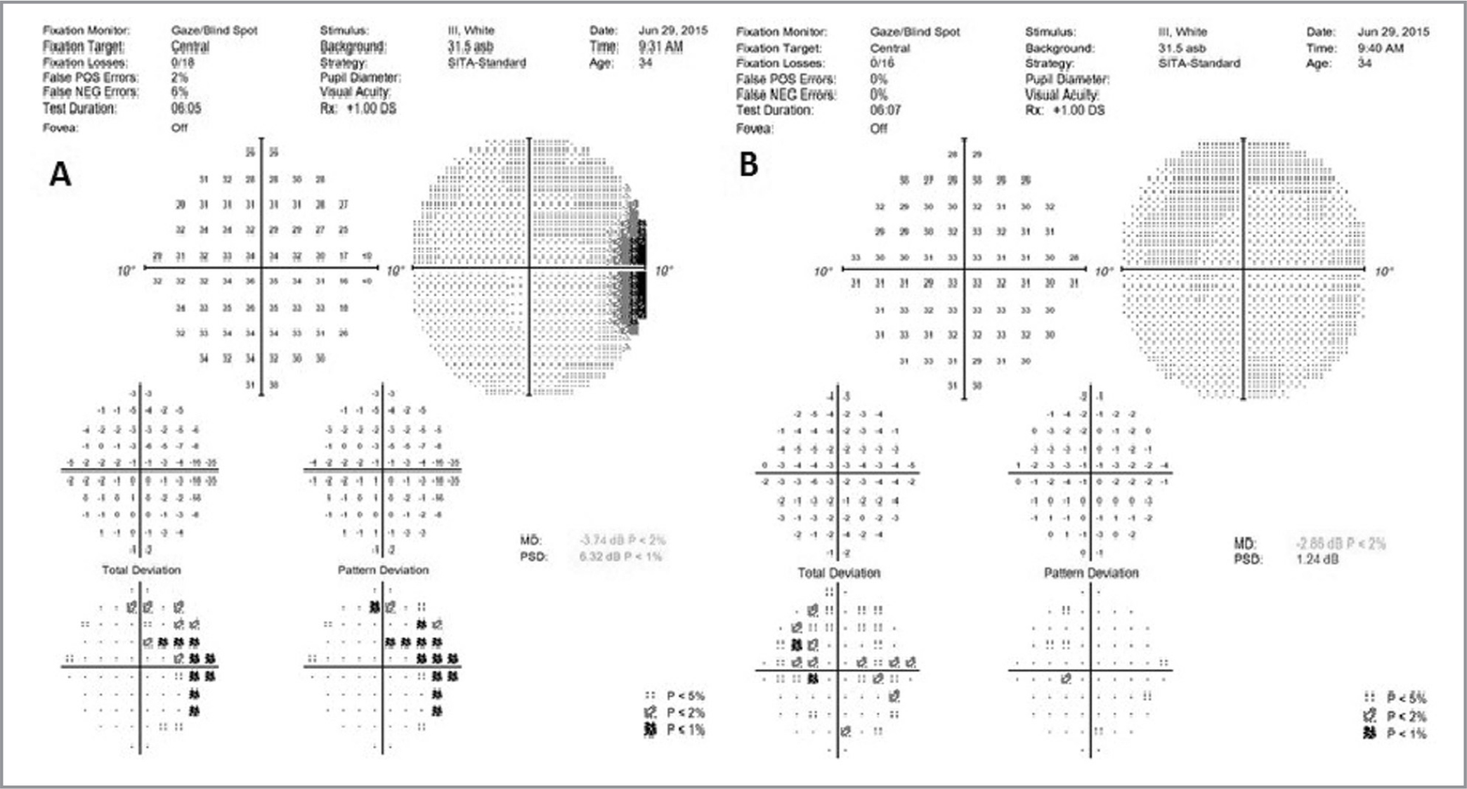 One month following the 2-year follow-up, the 10-2 visual field (VF) revealed a persistent temporal scotoma in the right eye (A). The VF was unchanged in the left eye (B).
