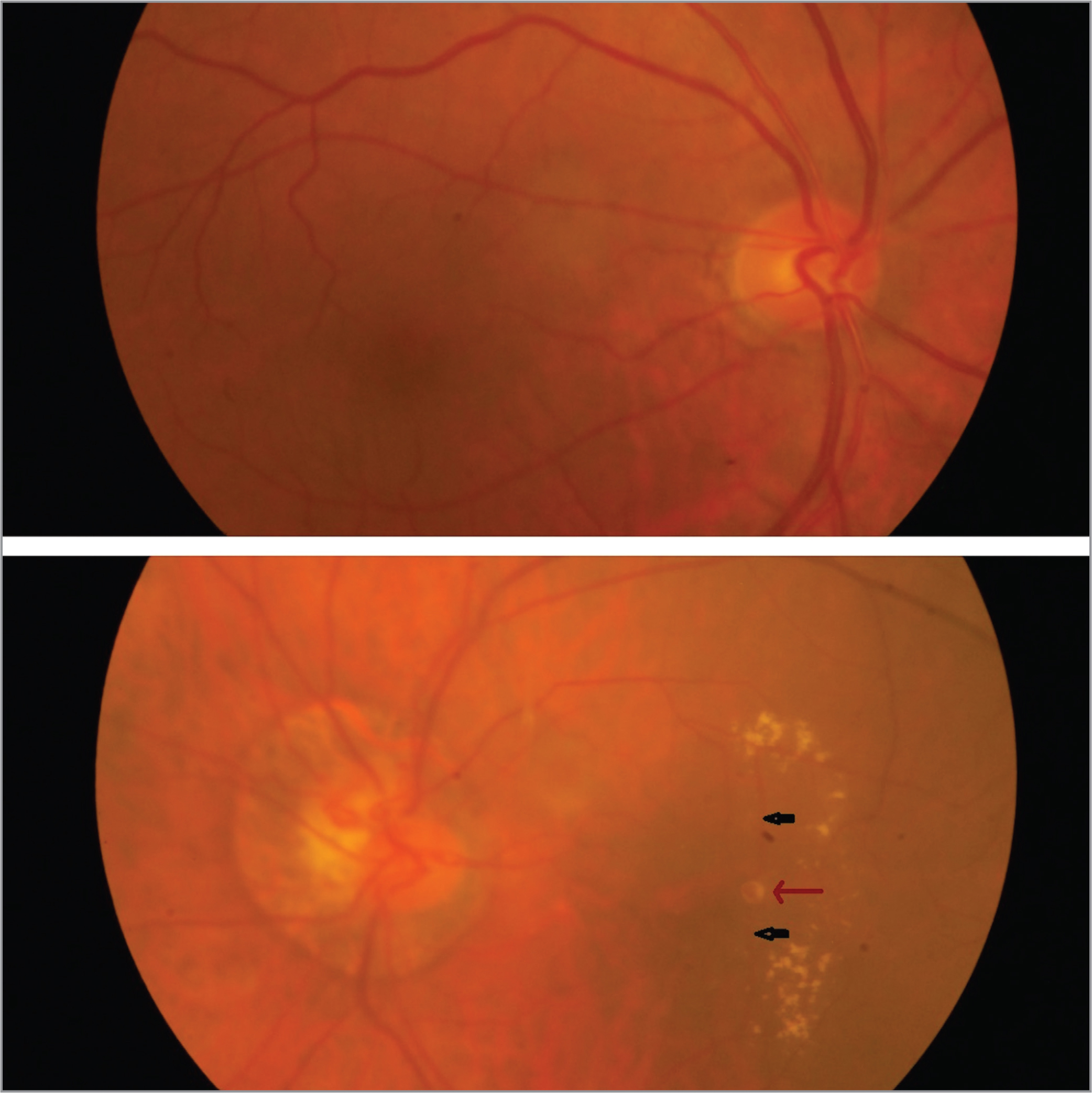 (Top) Normal right eye. (Bottom) Peripapillary staphyloma and arterial loops seen in the left eye. Right-angled straightened arterioles (black arrows) bending into a dilated aneurysmal bulge.