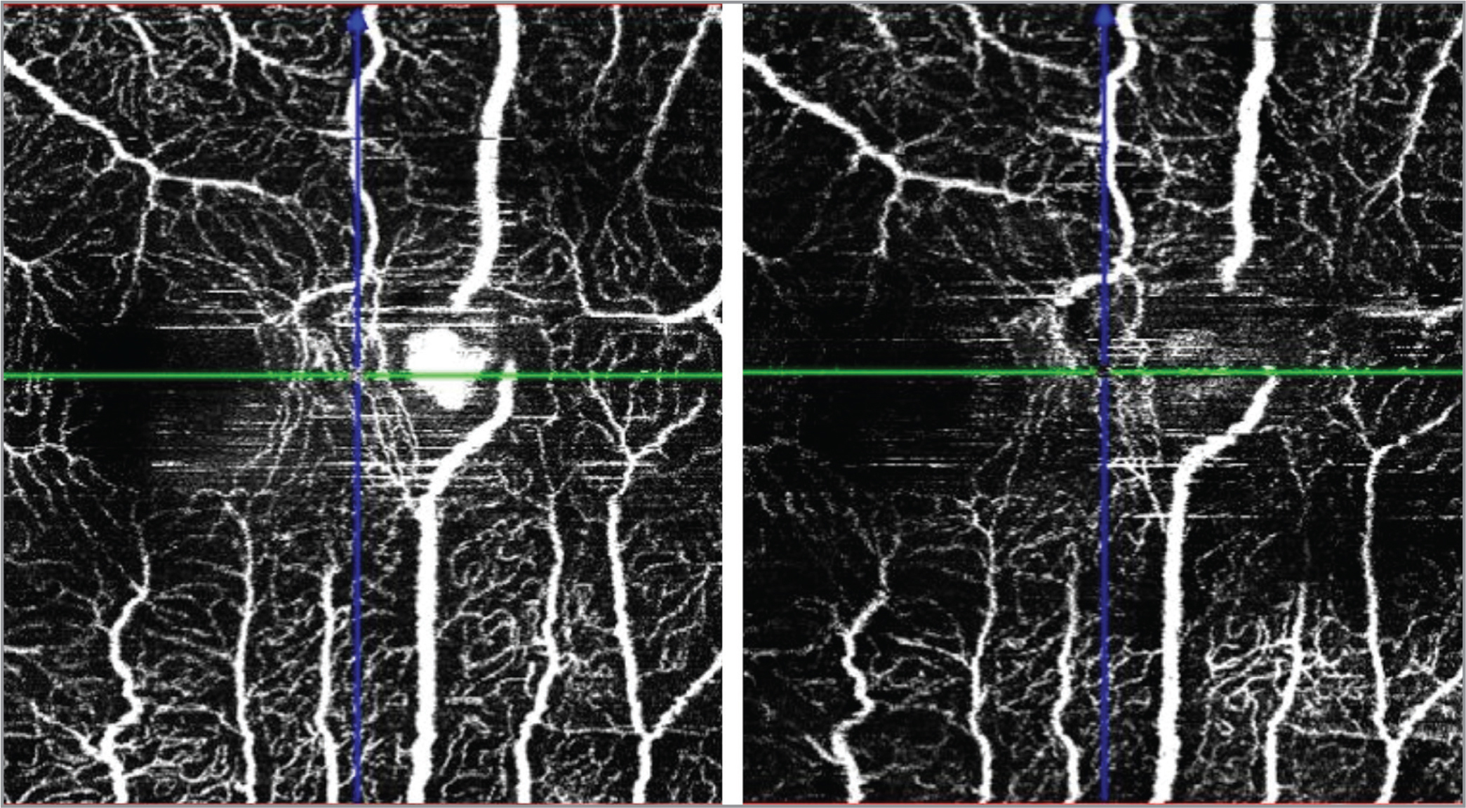 (Left) Pretreatment optical coherence tomography angiography. Superficial vascular plexus (SVP) showing the well-defined perifoveal exudative vascular anomalous complex (PEVAC)-like. (Right) Post-treatment disappearance of the PEVAC-like lesion in the SVP, suggestive of reduced or absent flow.