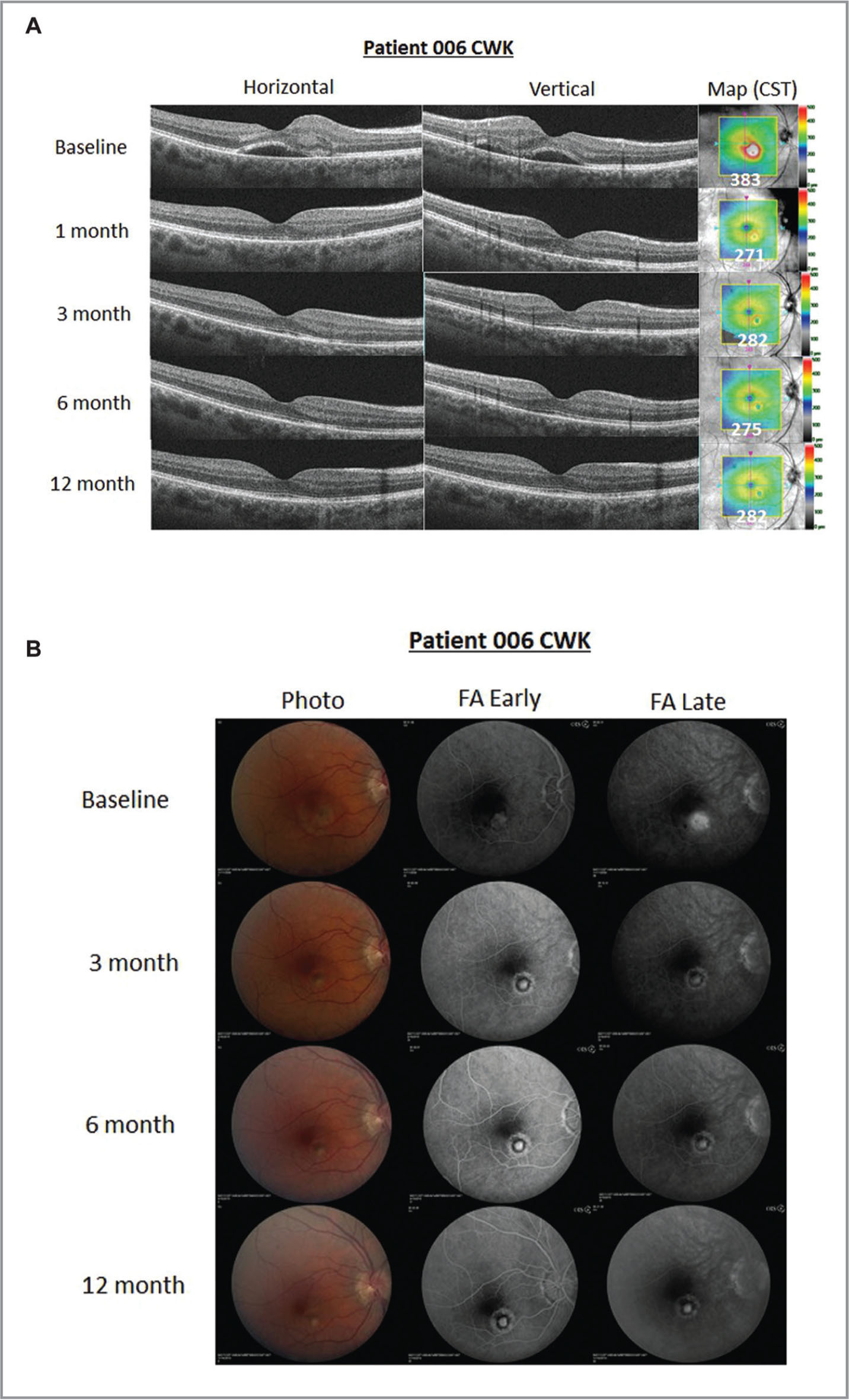 Example case images for Group A. Reduction in central subfield thickness and subfoveal cyst was observed by month 1, and elimination of late-phase fluorescein leakage was observed at month 3 in this typical patient from Group A (three injections followed by pro re nata dosing). The retinal structure improved as the subfoveal cyst observed on optical coherence tomography resolved by month 1 (A). By month 3 (first post-baseline fluorescein angiogram), the late subfoveal leakage has resolved (B).