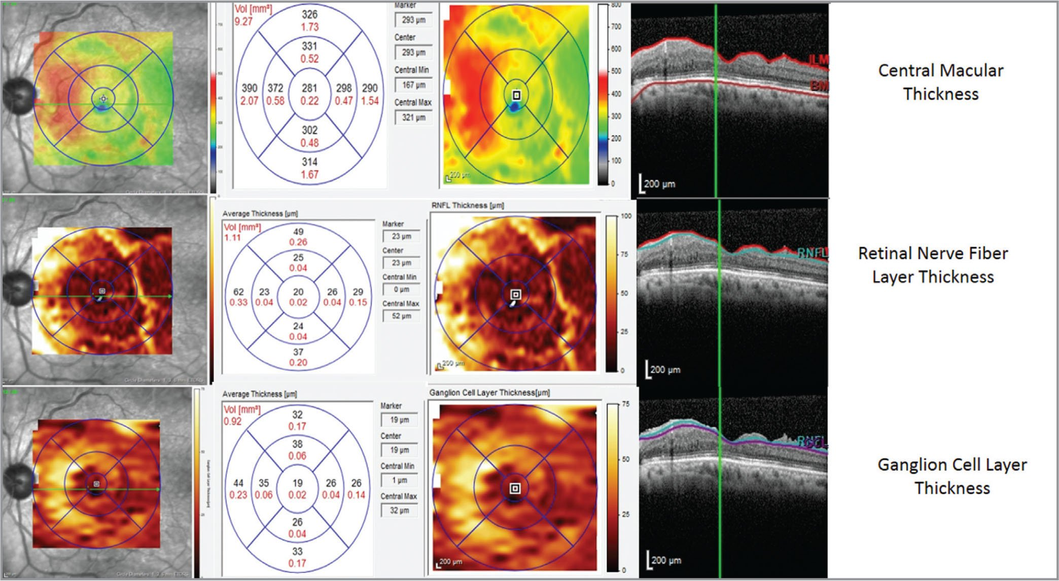 Central macular thickness, retinal nerve fiber layer, and ganglion cell layer segmentations.