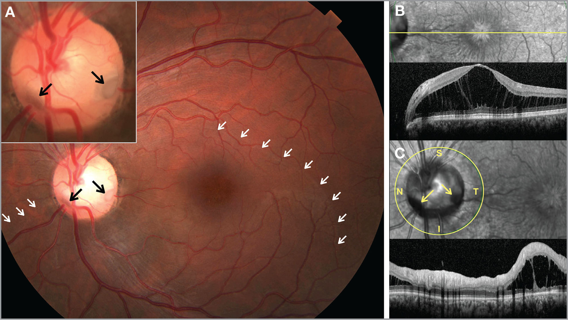 Two distinct optic disc pits are visible on funduscopy (back arrows); the border of intraretinal fluid is denoted with white arrows (A). Maculopathy and splitting (schisis) of the outer retinal layers is seen on optical coherence tomography (B). Intraretinal fluid extends nasally (C).