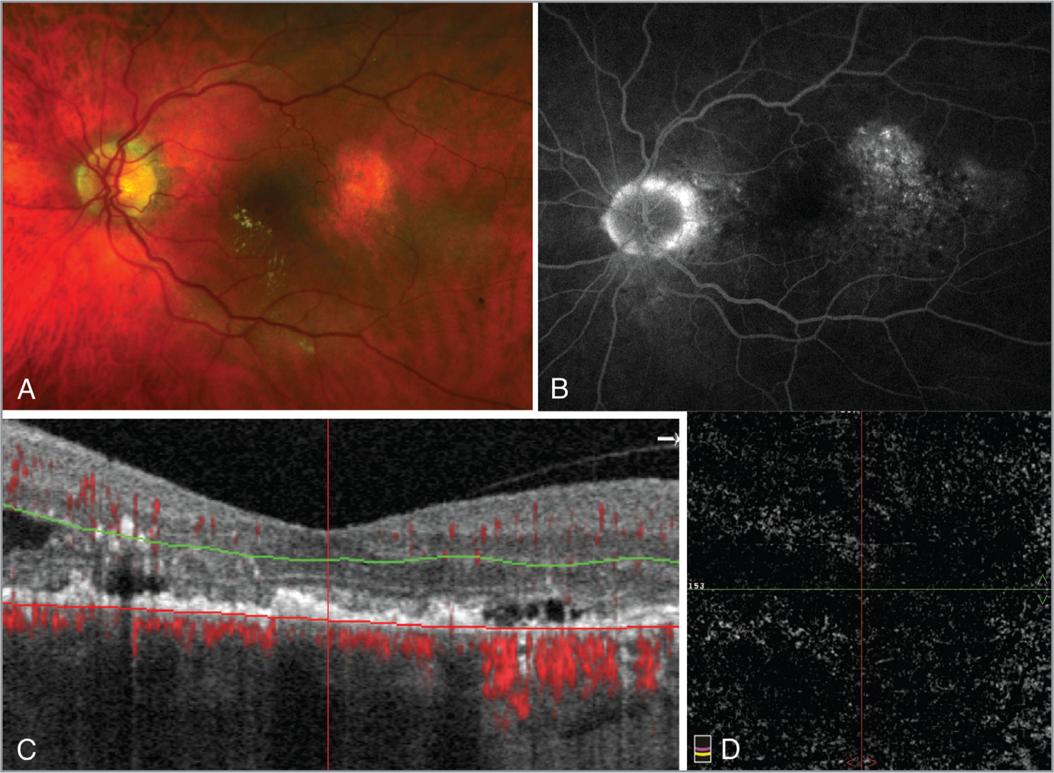 (A) Fundus photo of the left eye depicting macular drusenoid deposits with retinal pigment epithelium mottling. (B) Late-frame fluorescein angiography image of the left eye shows temporal hyperfluorescence. (C) An optical coherence tomography (OCT) B-scan with outer retina segmentation and OCT angiography (OCTA) decorrelation signal overlay show intra- and subretinal fluid with subretinal hyperreflective deposits and no increase in flow signal. (D) Corresponding en face OCTA of the outer retina shows no choroidal neovascularization.