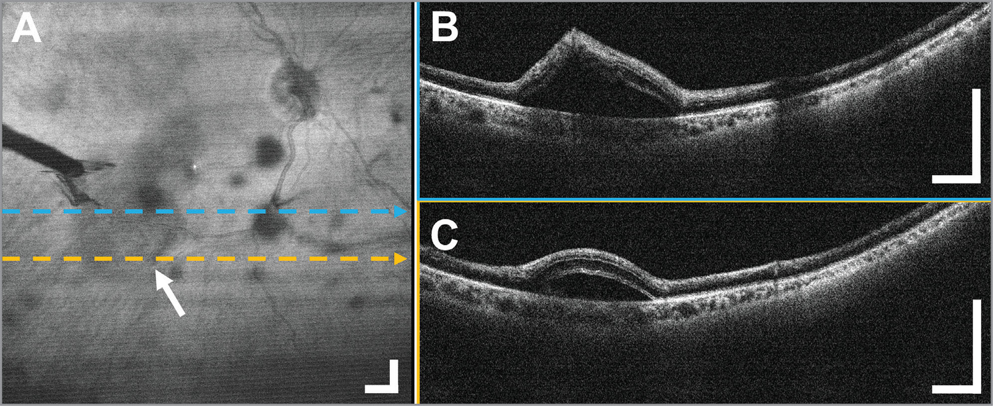 A 12 × 12 mm2 widefield optical coherence tomography (OCT) in the diabetic tractional detachment of a 50-year-old male subject imaged through the standard 80 diopter non-contact fundus lens during a vitrectomy to evaluate a possible retinal tear. (A) Widefield en face OCT projection with the arrow and tool shadow indicating the off-center retinal detachment. During the surgery, there was a question of an iatrogenic retinal break as a result of peeling with forceps. (B, C) Representative OCT B-scans obtained over the area showed the tented retina, but confirmed the absence of a retinal break. Displayed B-scans are averages of five adjacent B-scans. Scale bars are 1 mm.